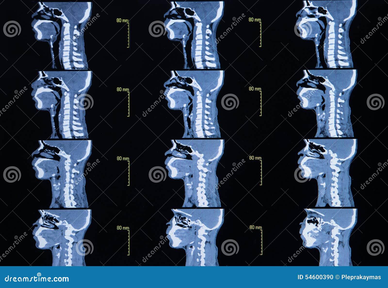 Серия изображений от компьютеризированной томографии шеи
