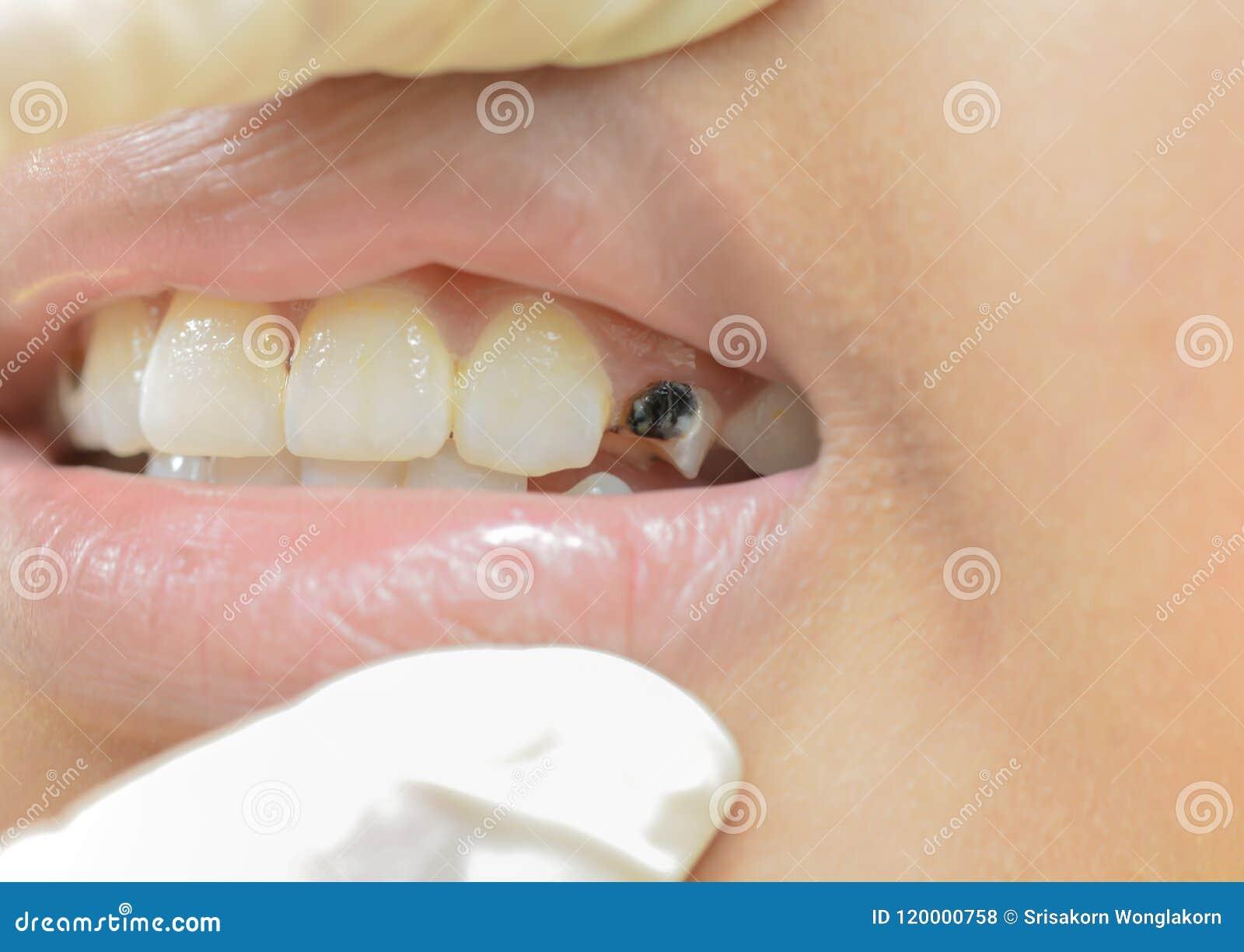 Сломленные зубы в детях