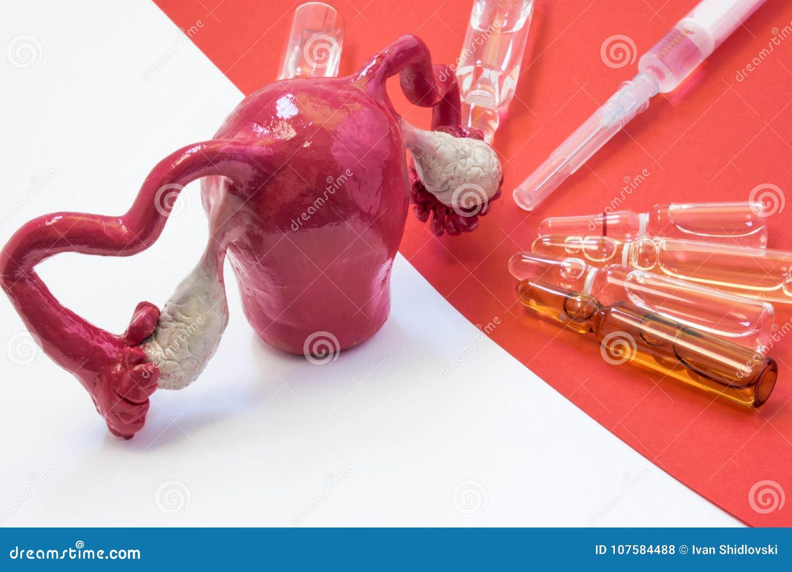Сцена обрабатывать или вакцинирование матки, STD или генитальных заболеваний - острой и хронической Анатомическая модель матки с