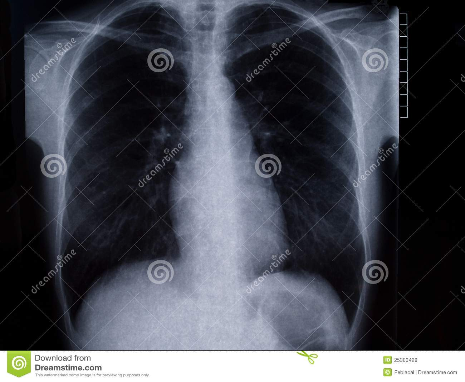 торакс рентгенографирования