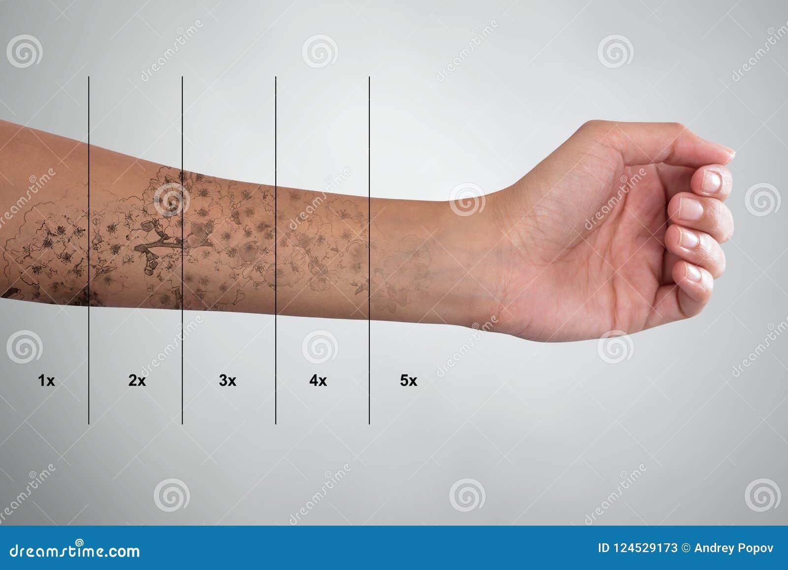 Удаление татуировки на руке ` s женщины