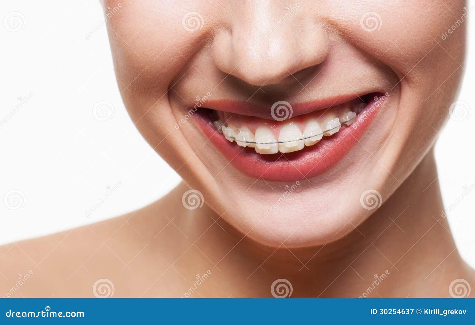 Зубоврачебные расчалки