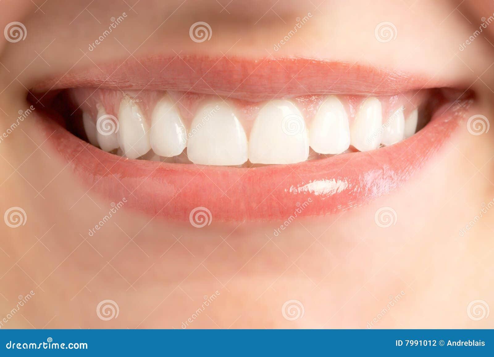 усмешка рта