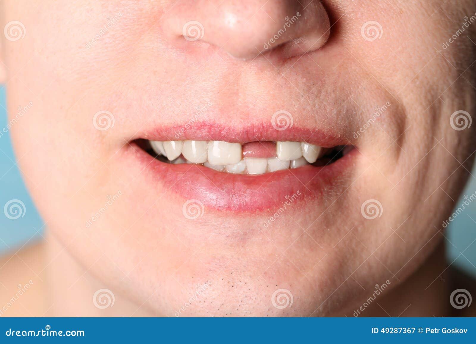 Фото девушка челюсть