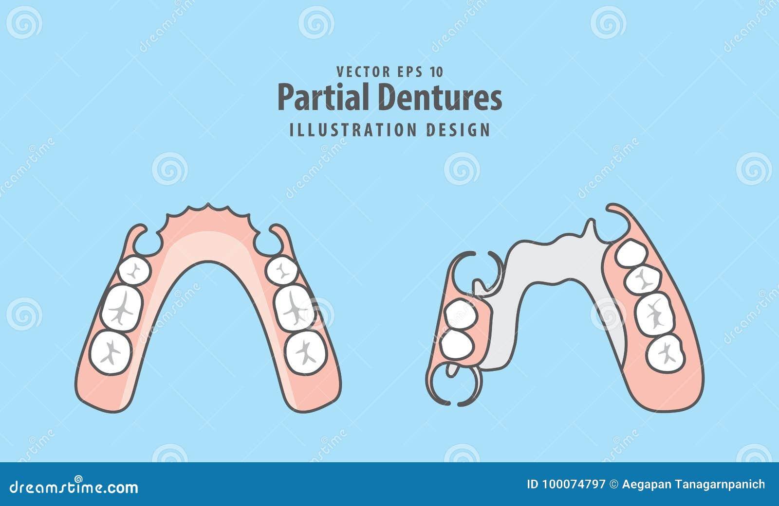 Частично вектор иллюстрации Dentures на голубой предпосылке зубоврачебно