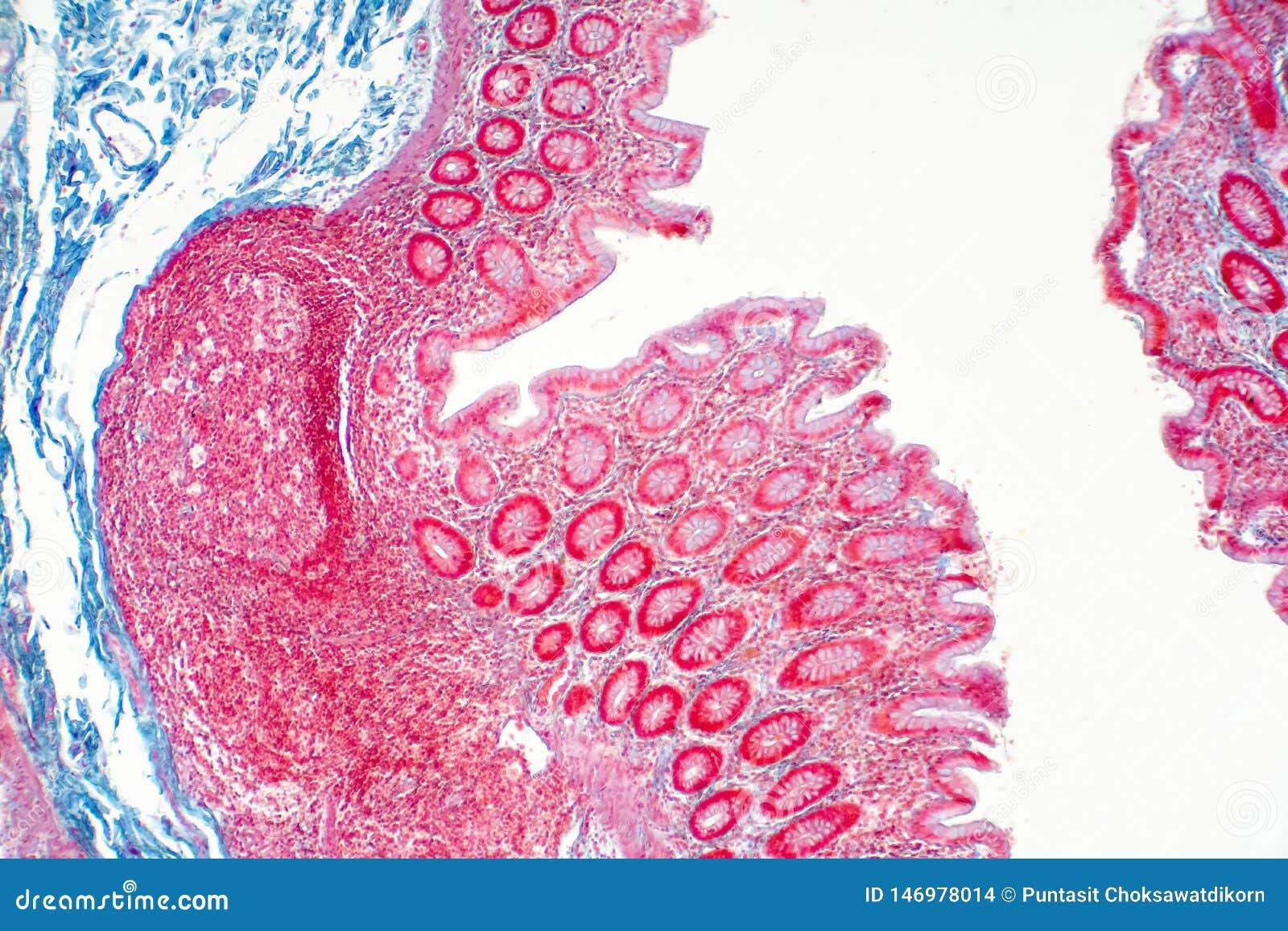 Человеческая ткань толстой кишки под взглядом микроскопа