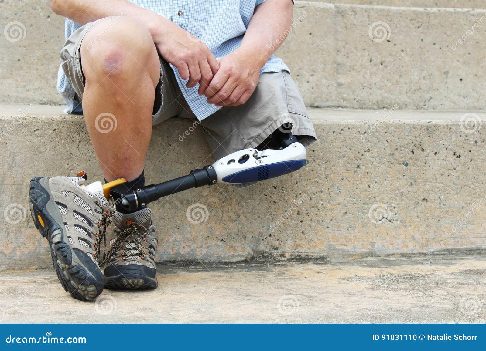 Человек с ампутированной конечностью при пересеченные ноги