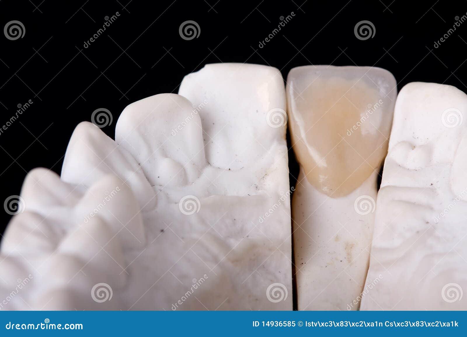 雕蜡牙的步骤图解