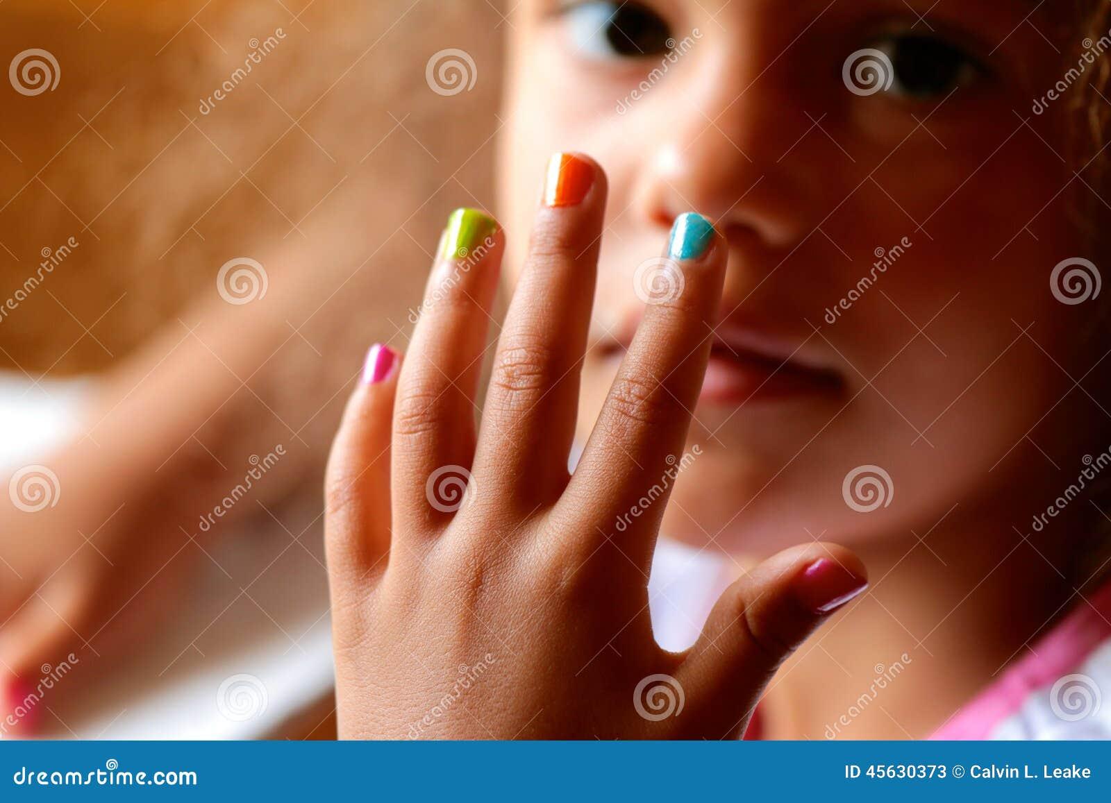 儿童指甲异长常图片