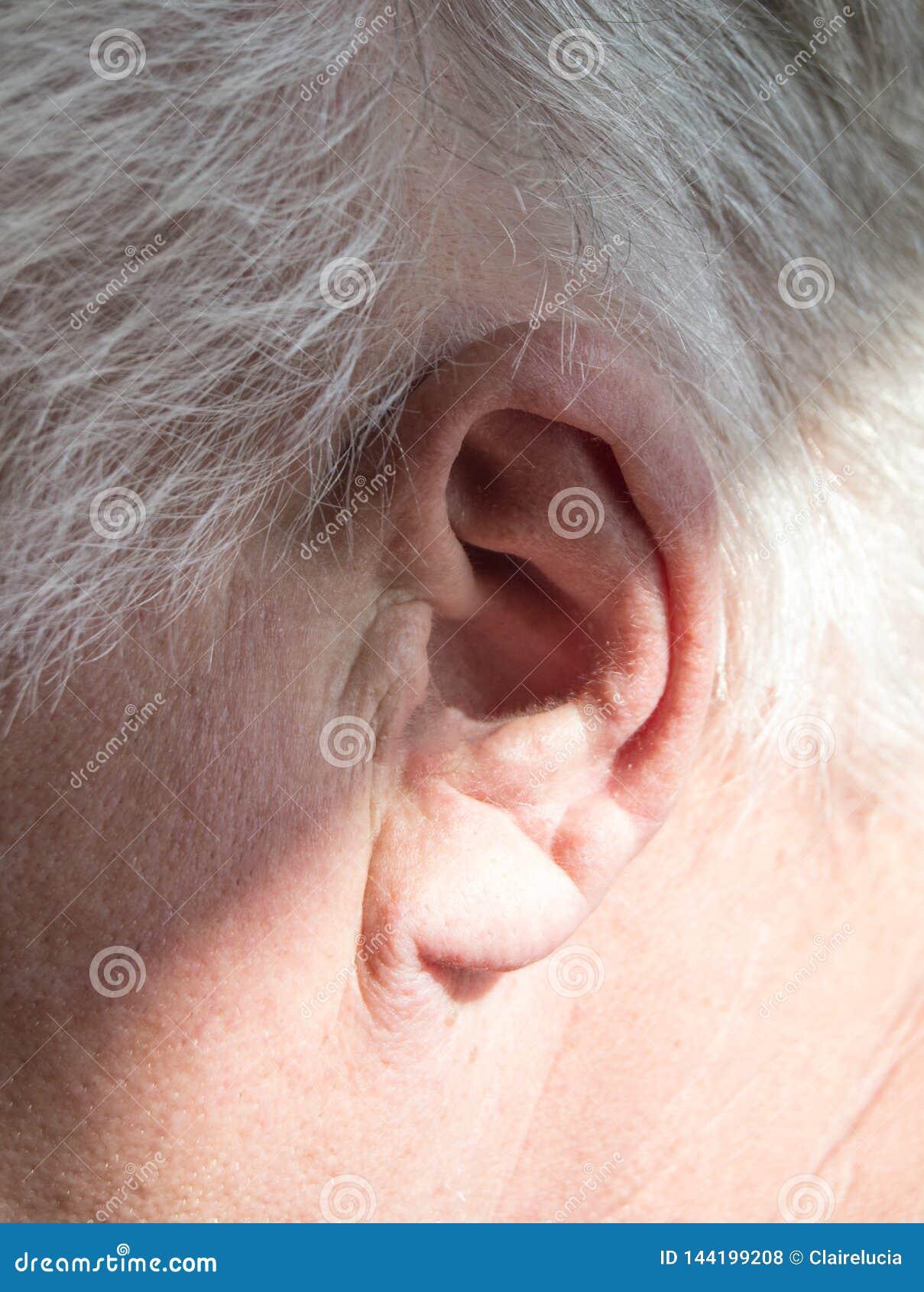一个灰发的年长人的左耳朵有听力丧失的,听见问题,老聋人民的修复的概念
