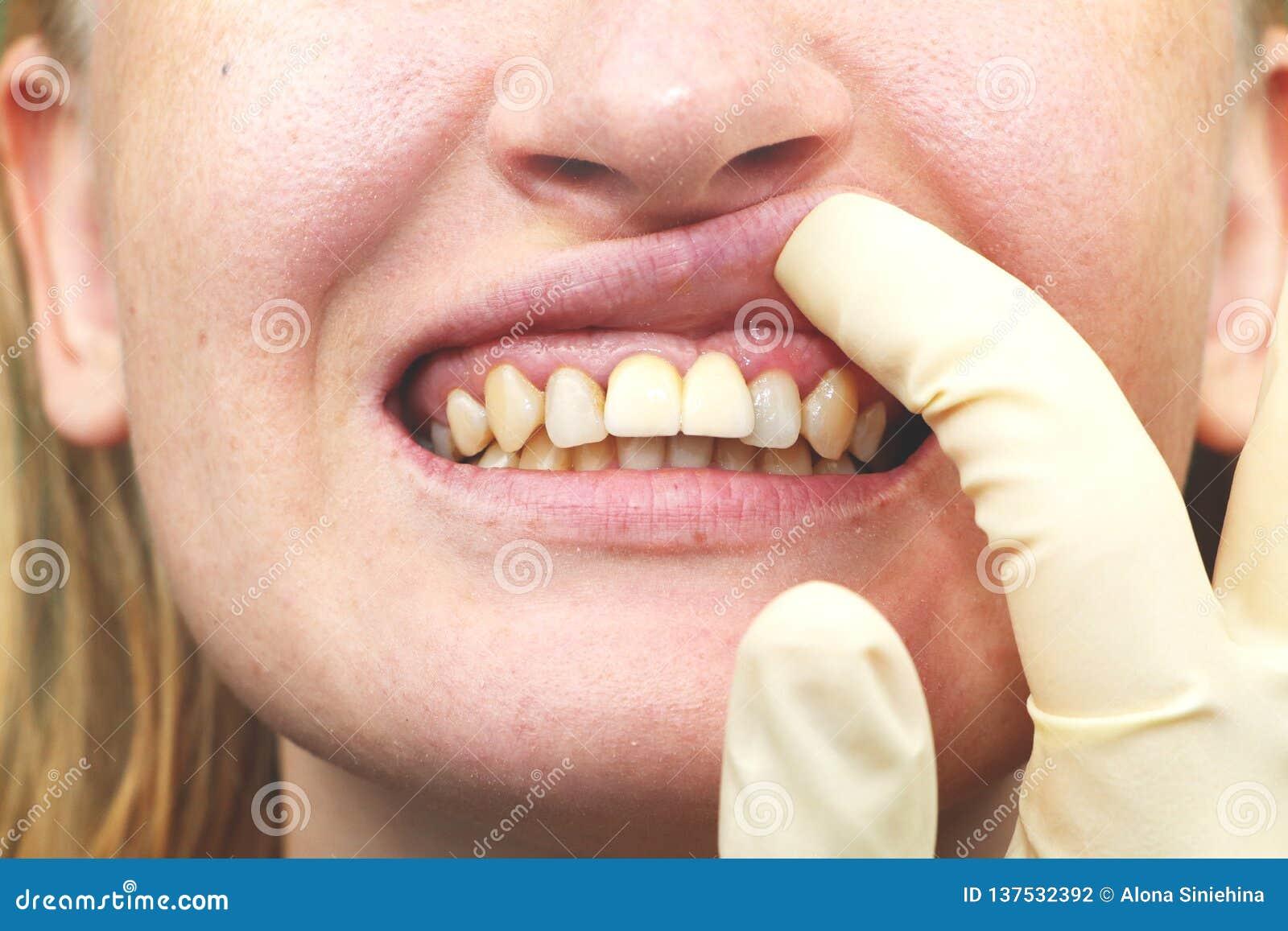 不幸地被种入的牙插入物特写镜头