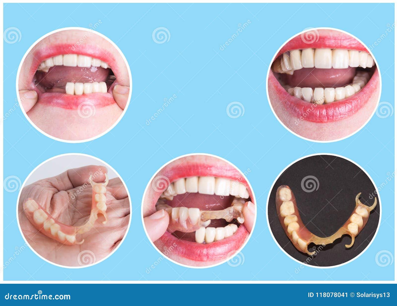 与上部和更低的假肢的牙齿修复,在治疗前后