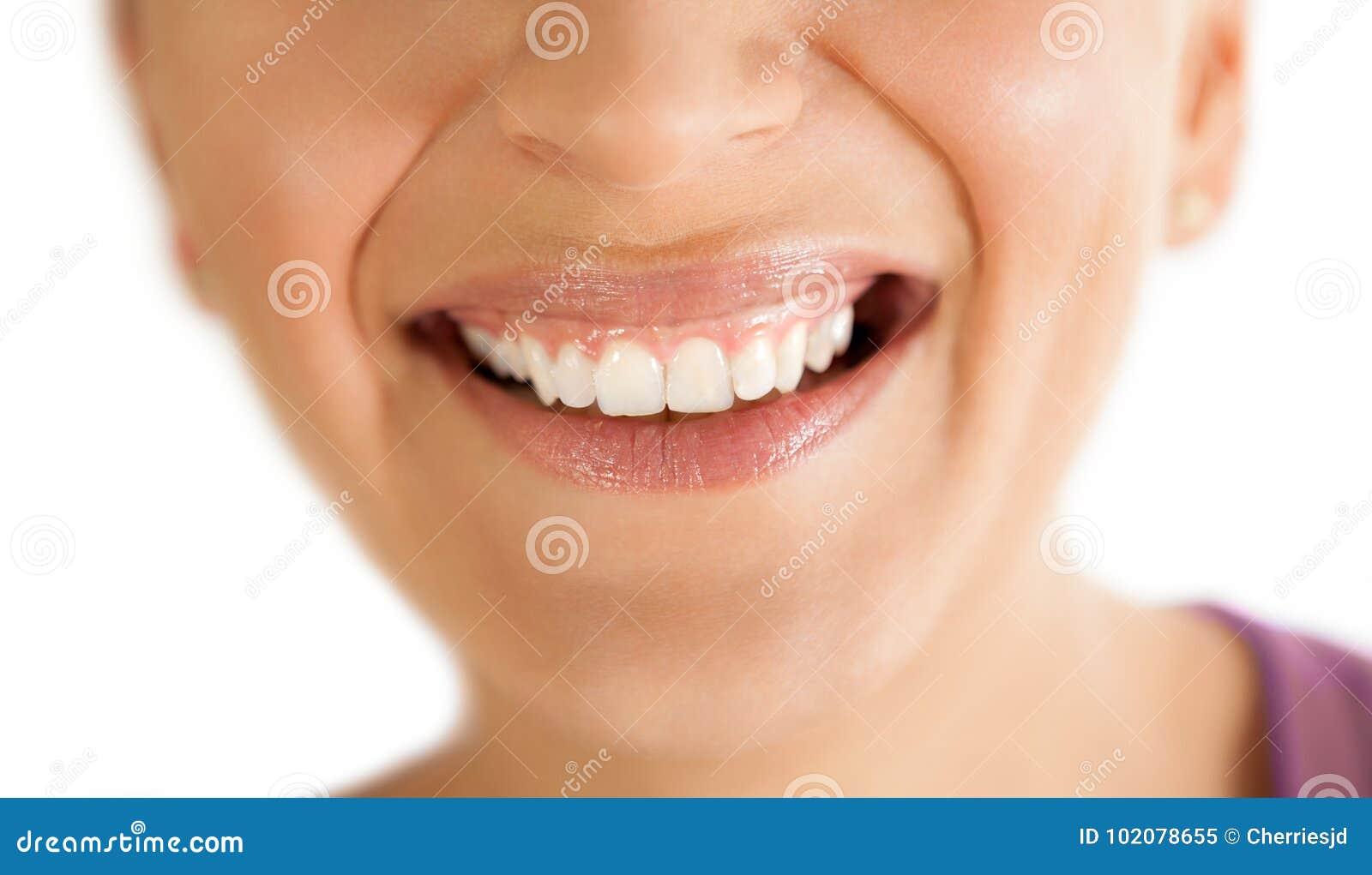 与健康牙的微笑