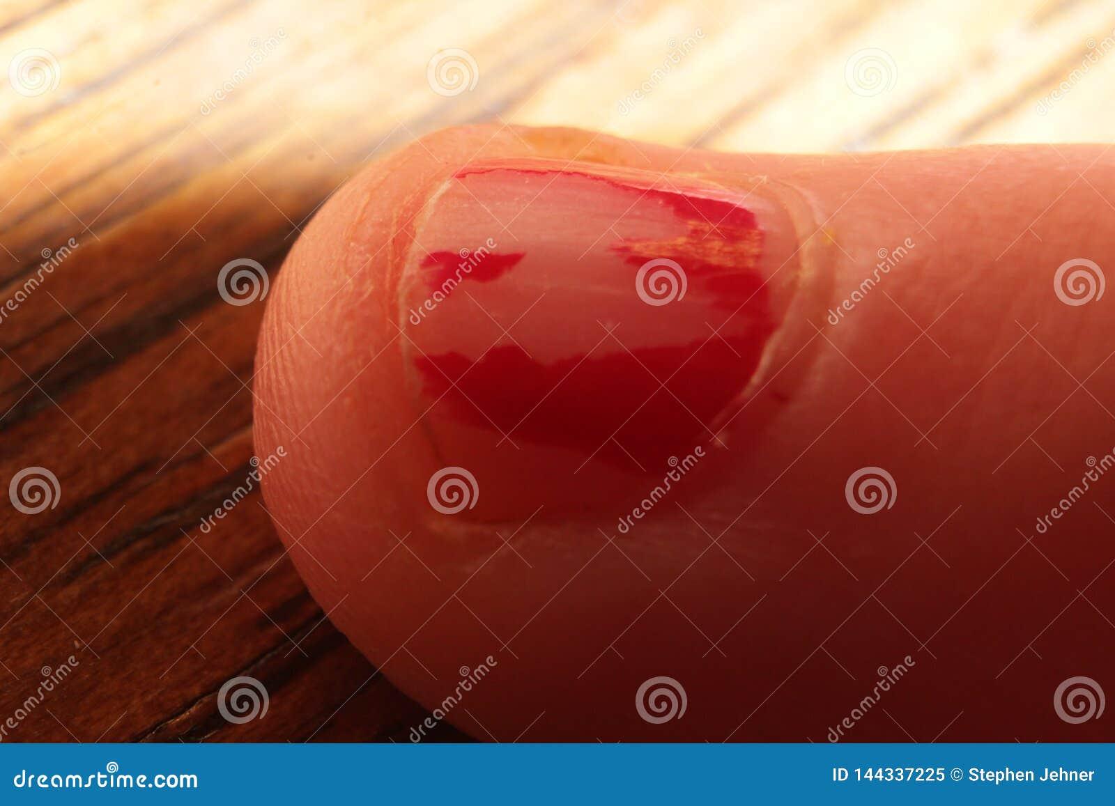 与切削的擦亮剂的宏观儿童手指甲