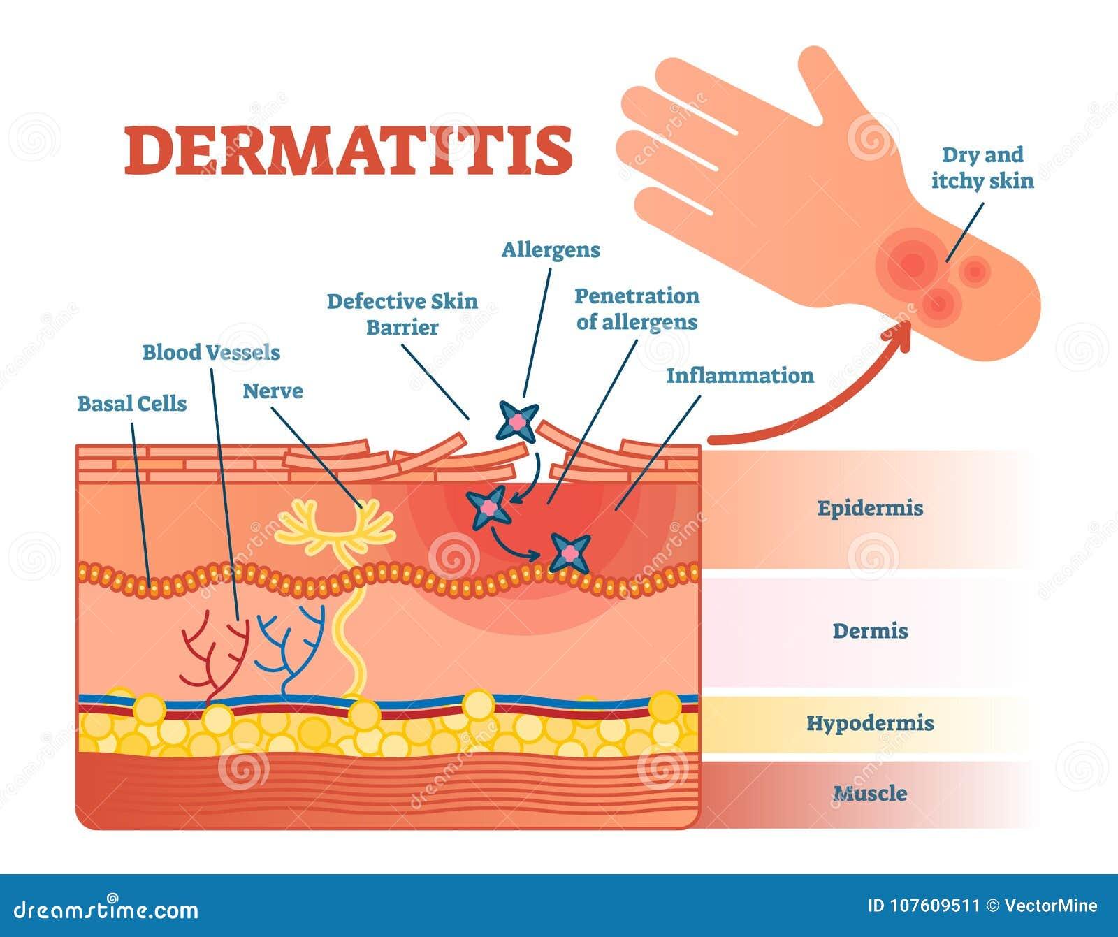 与皮肤层数和变态反应原运动的皮炎平的传染媒介例证图 教育体格检查信息