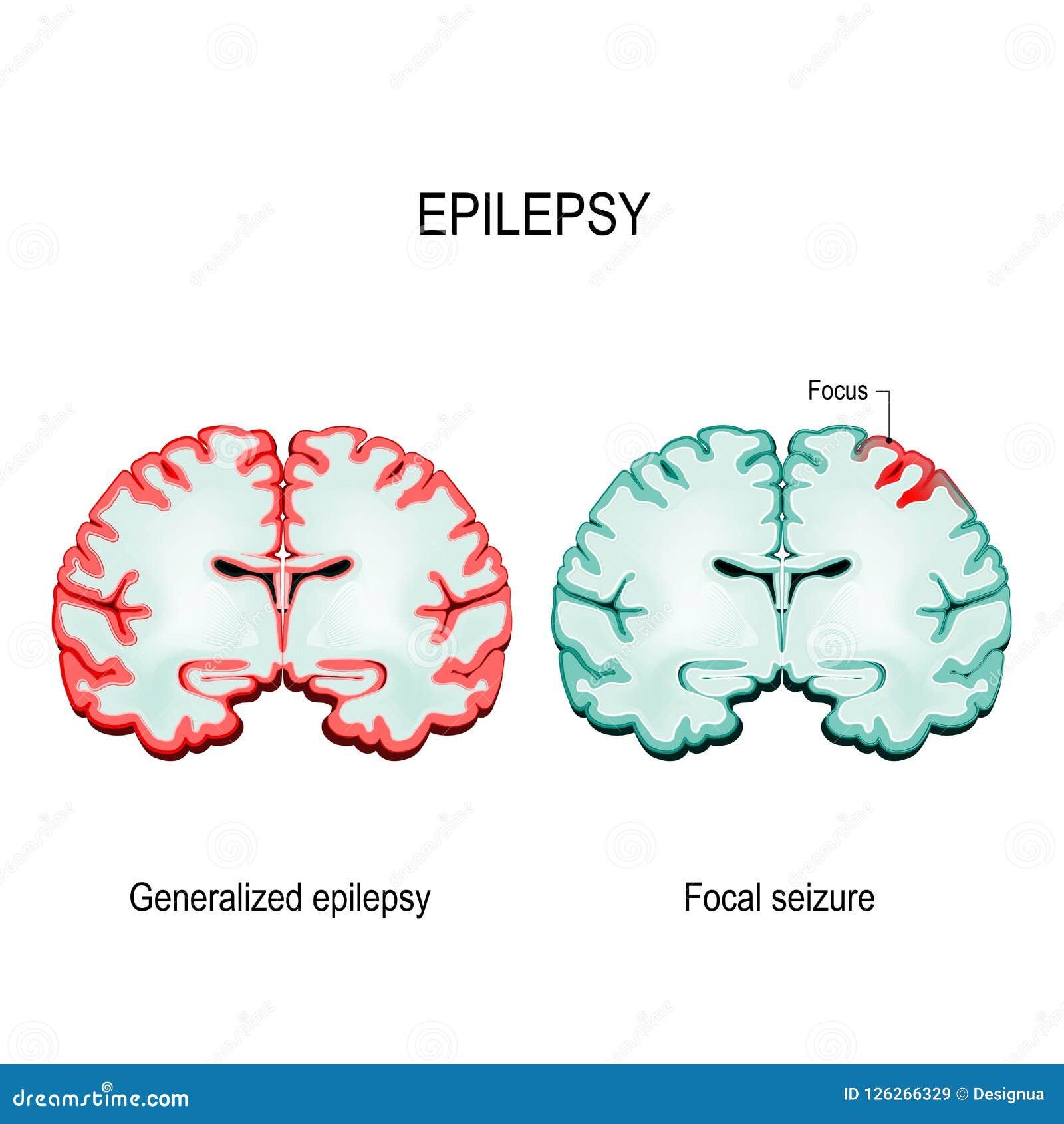 主要广义癫痫症和焦点夺取