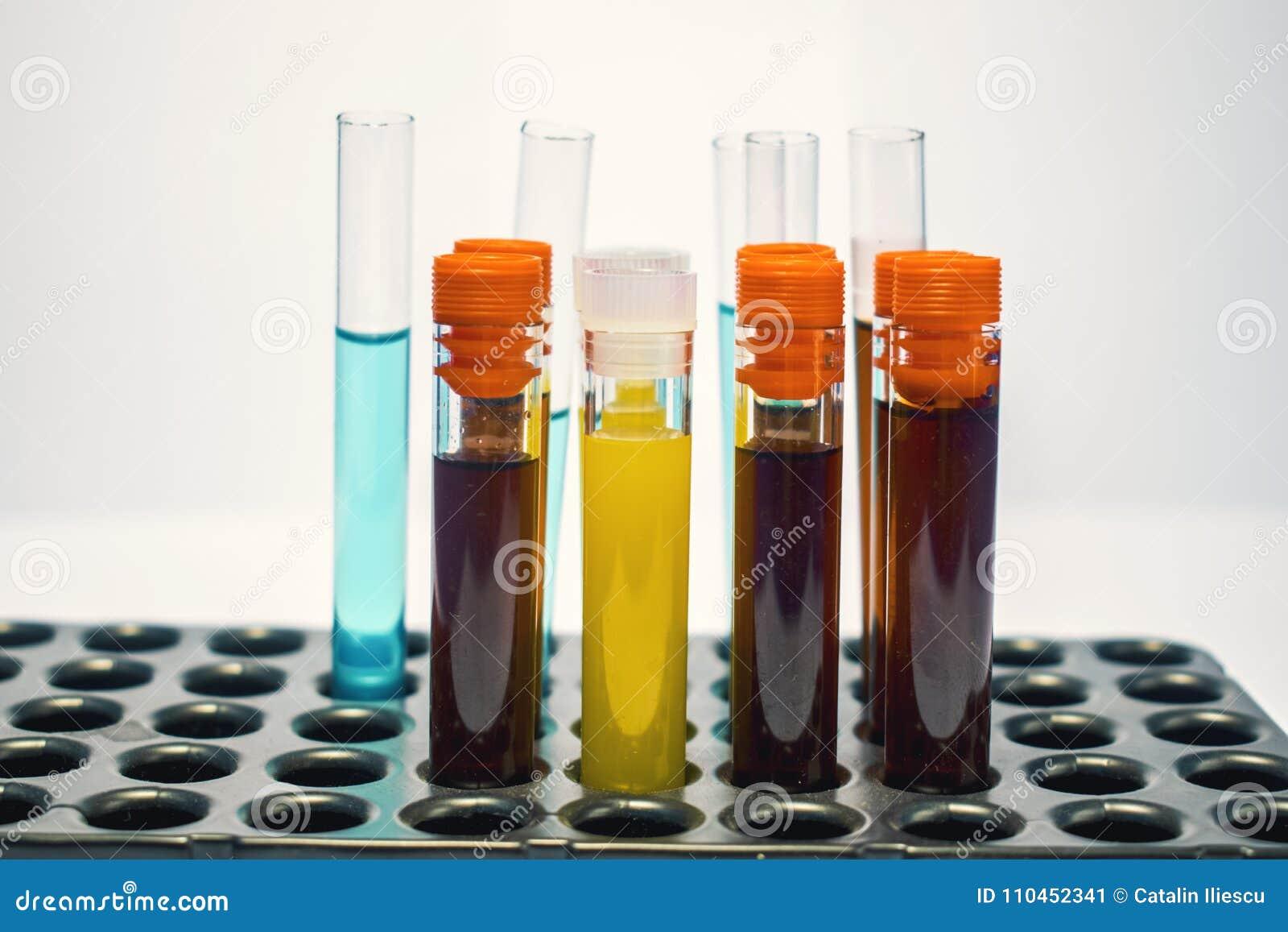 五颜六色的实验室试验管,生化验血,尿检,试管,医疗分析,研究概念,生育力r