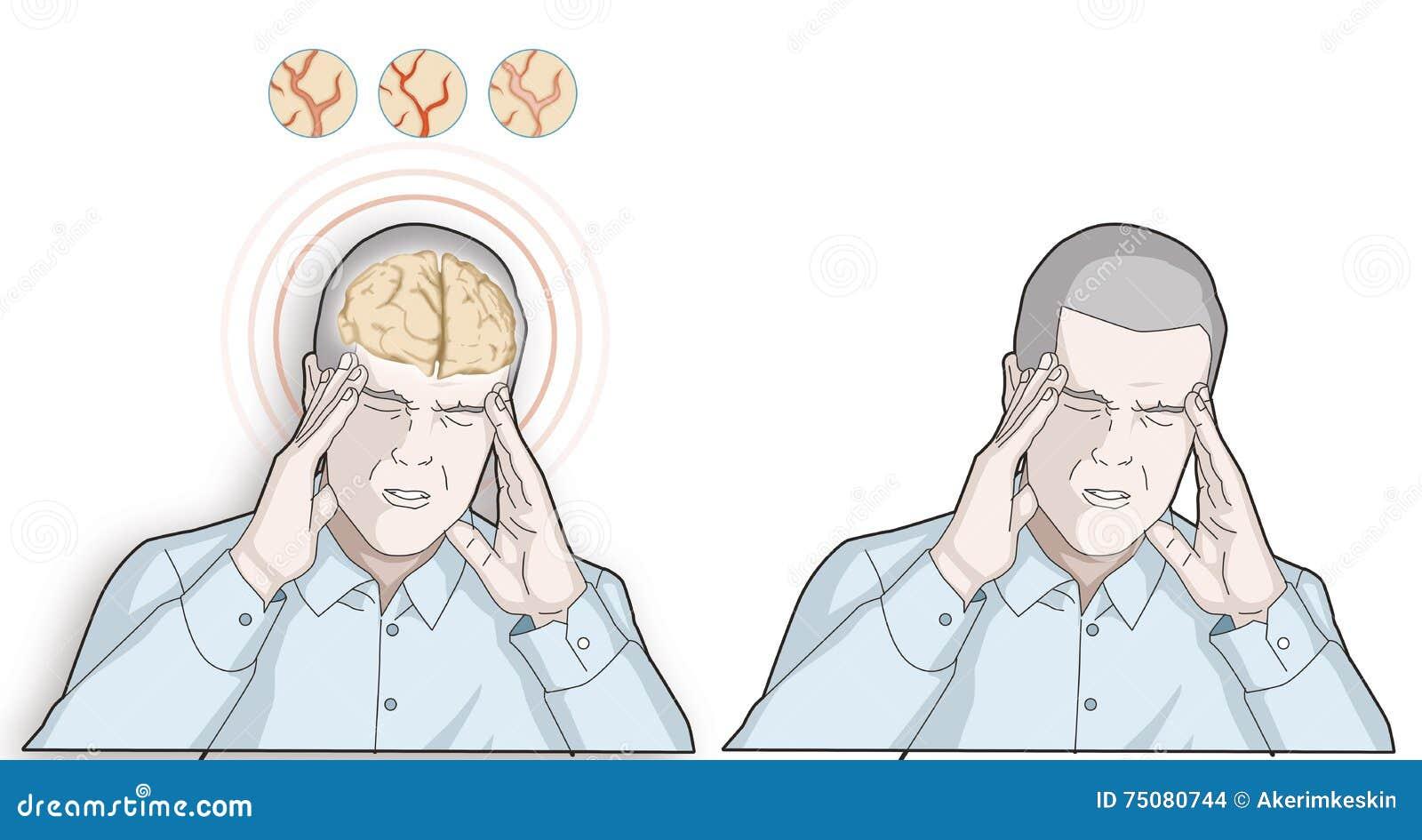 Korona 頭痛