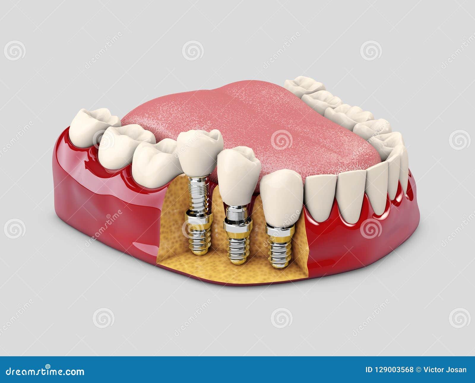 人的牙和牙插入物 3d例证