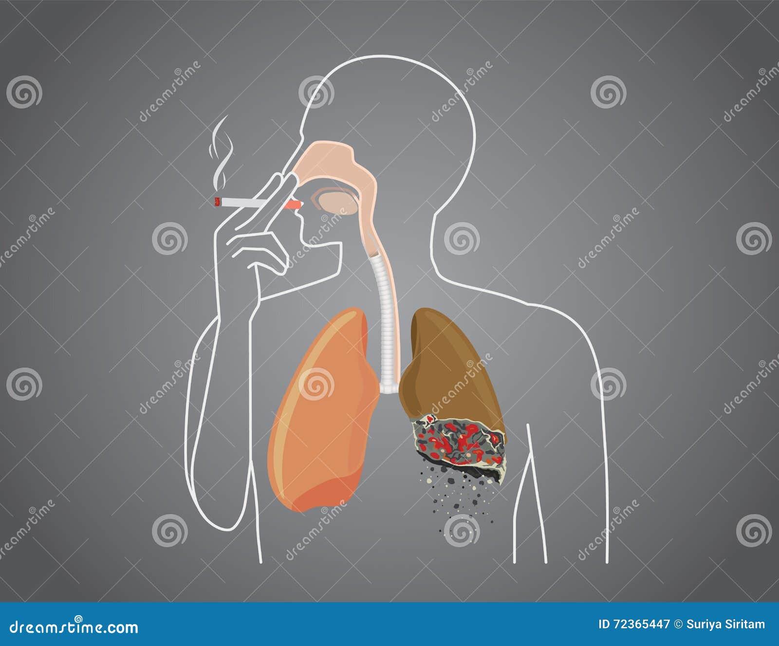 人被烧在有抽烟的肺下