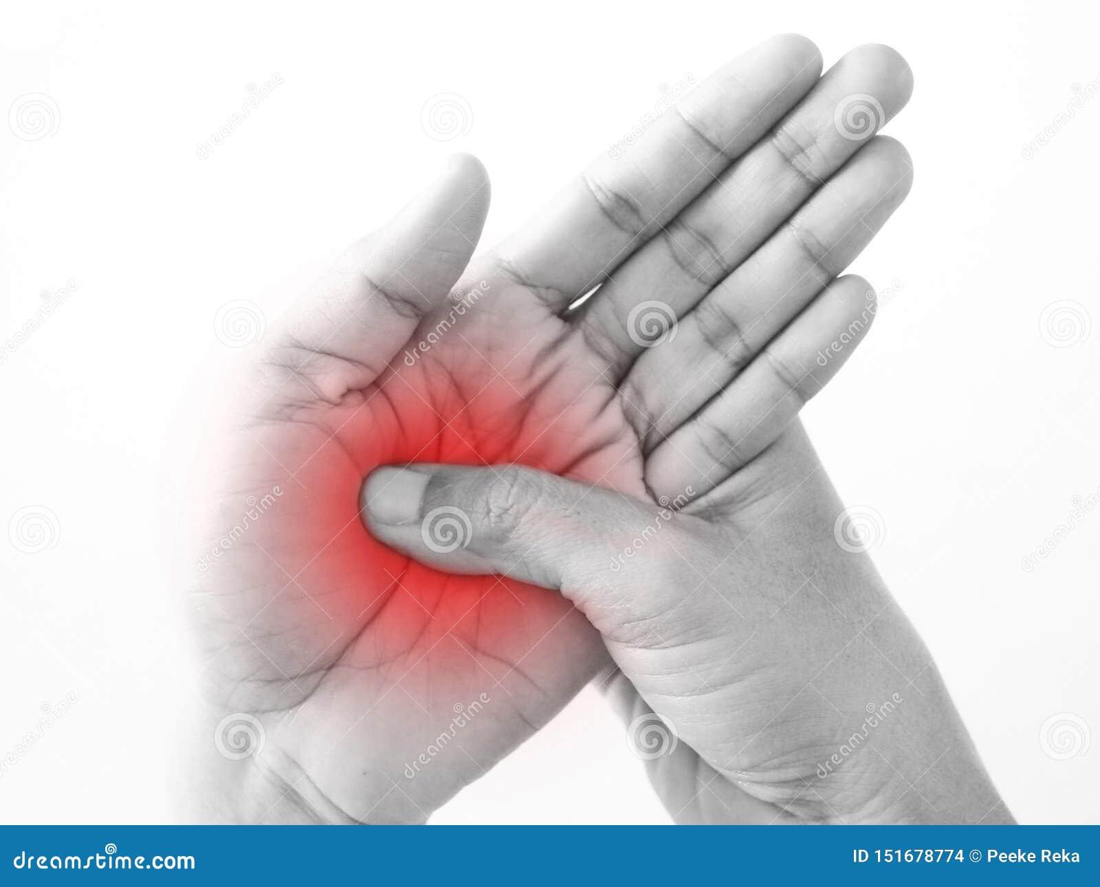 从工作周边神经病的手部受伤棕榈