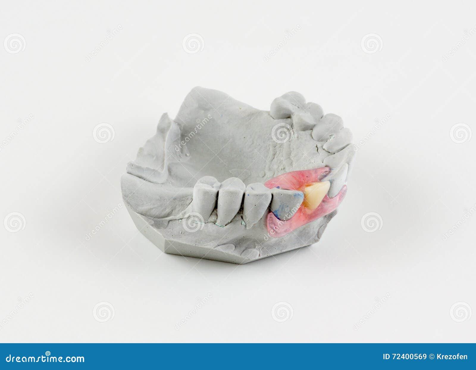 假牙类型蝴蝶