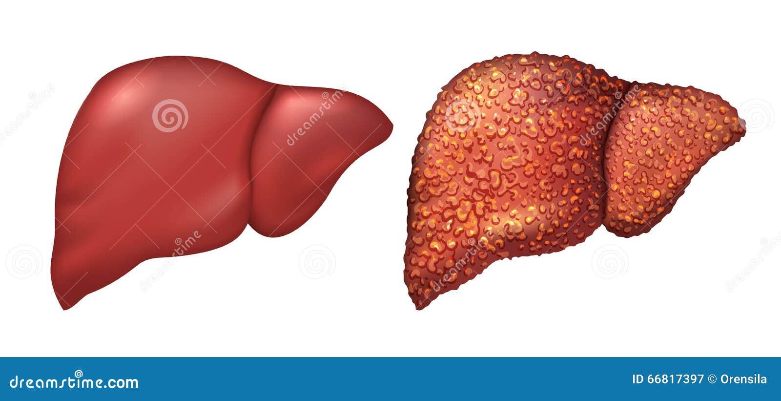 健康人的肝脏 有肝炎的肝脏病人 肝脏是患者 肝脏肝病  反映酒精中毒