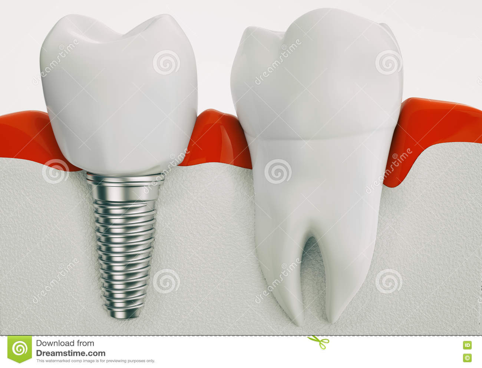 健康牙和牙插入物解剖学在下颌骨头- 3d翻译