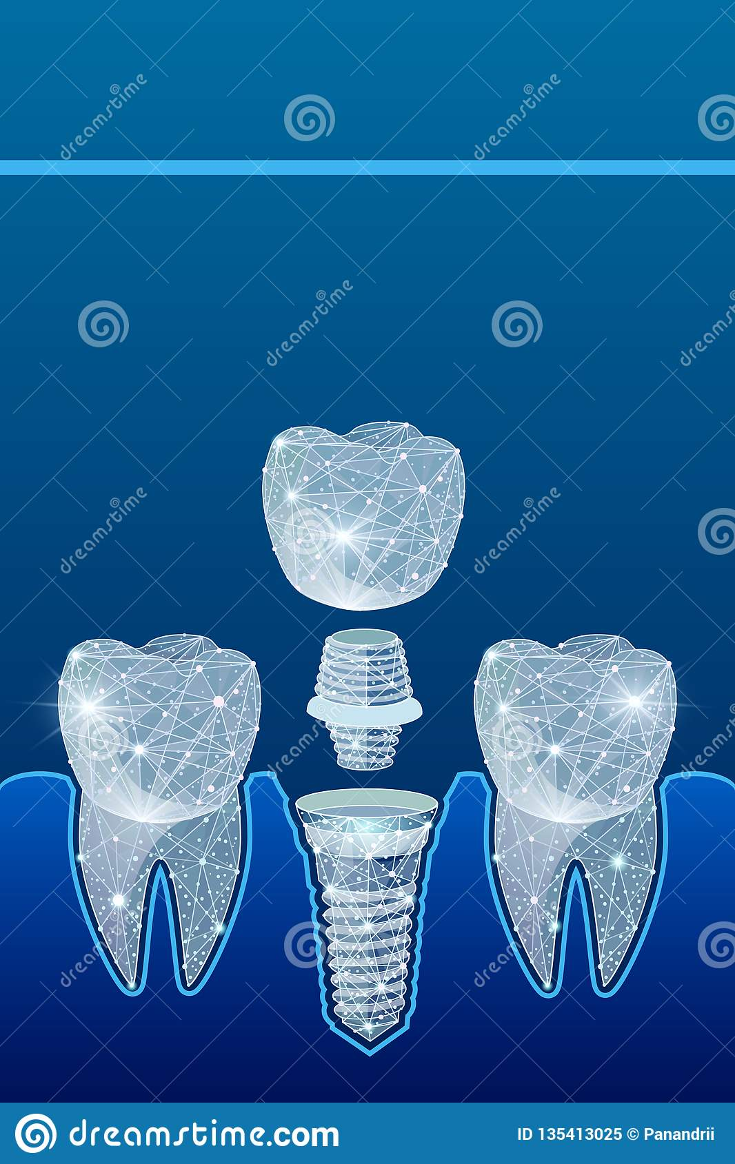 健康牙和牙插入物 牙科 人的牙的安放 例证