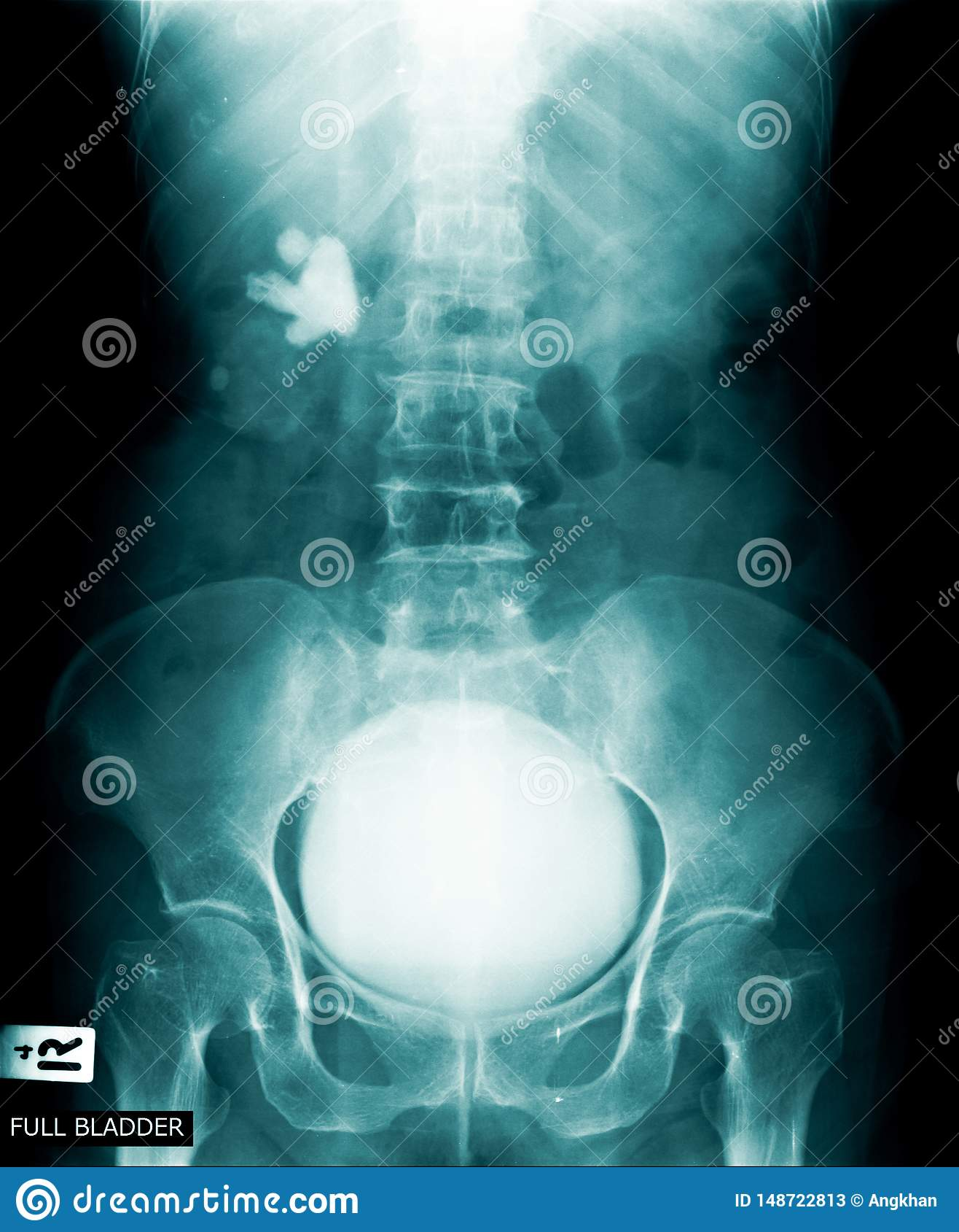 充分的膀胱X-射线图象