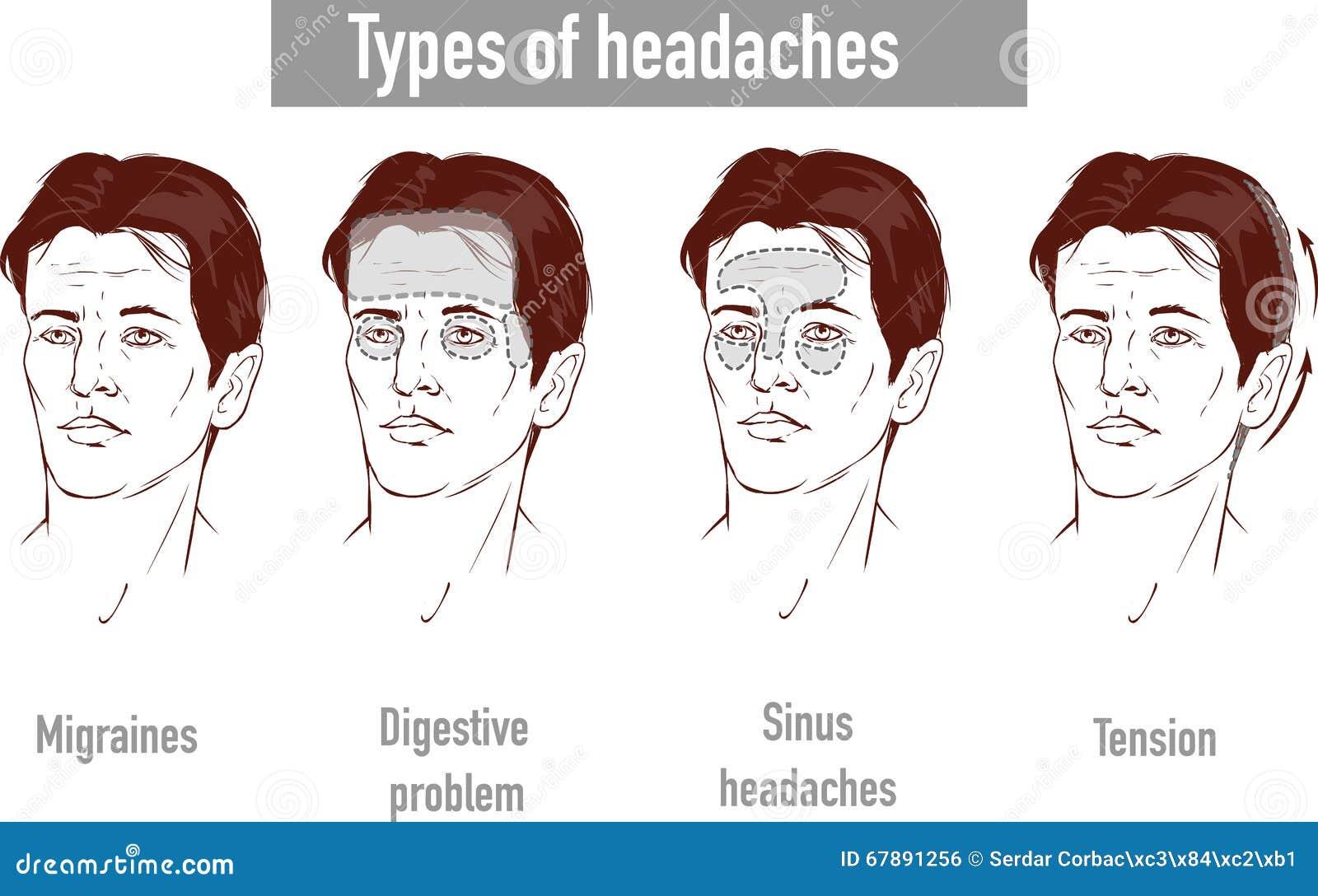 关于头疼4类型的例证在患者另外区域