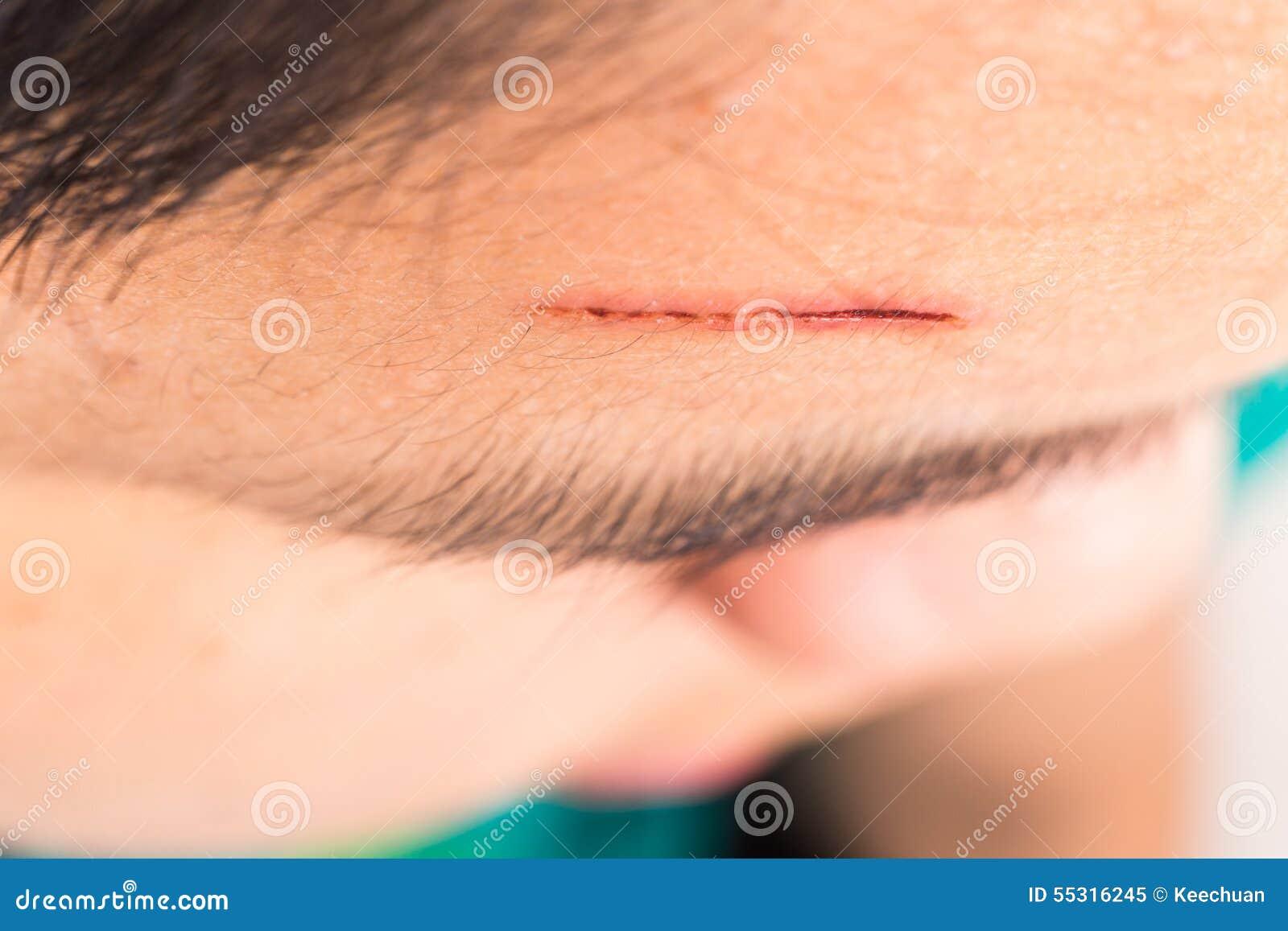 关闭在前额的痛苦的创伤从深刻的裁减
