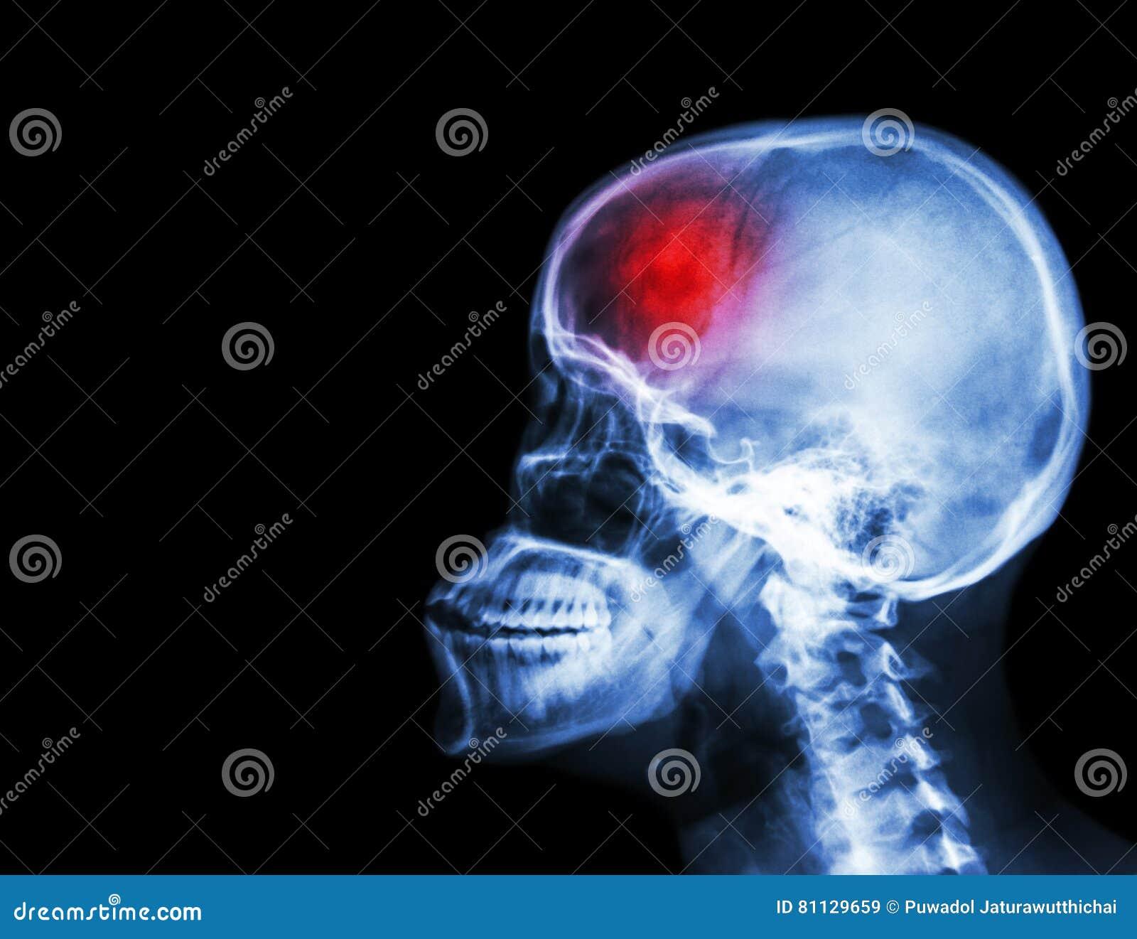 冲程 摄制X-射线头骨和子宫颈脊椎侧向视图和冲程 脑血管故障 空白的区域在左边