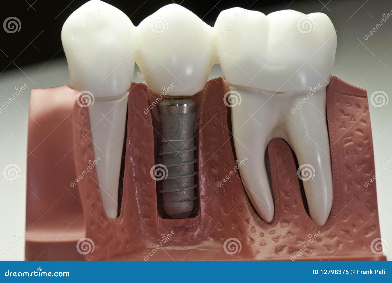 加盖的牙插入物设计
