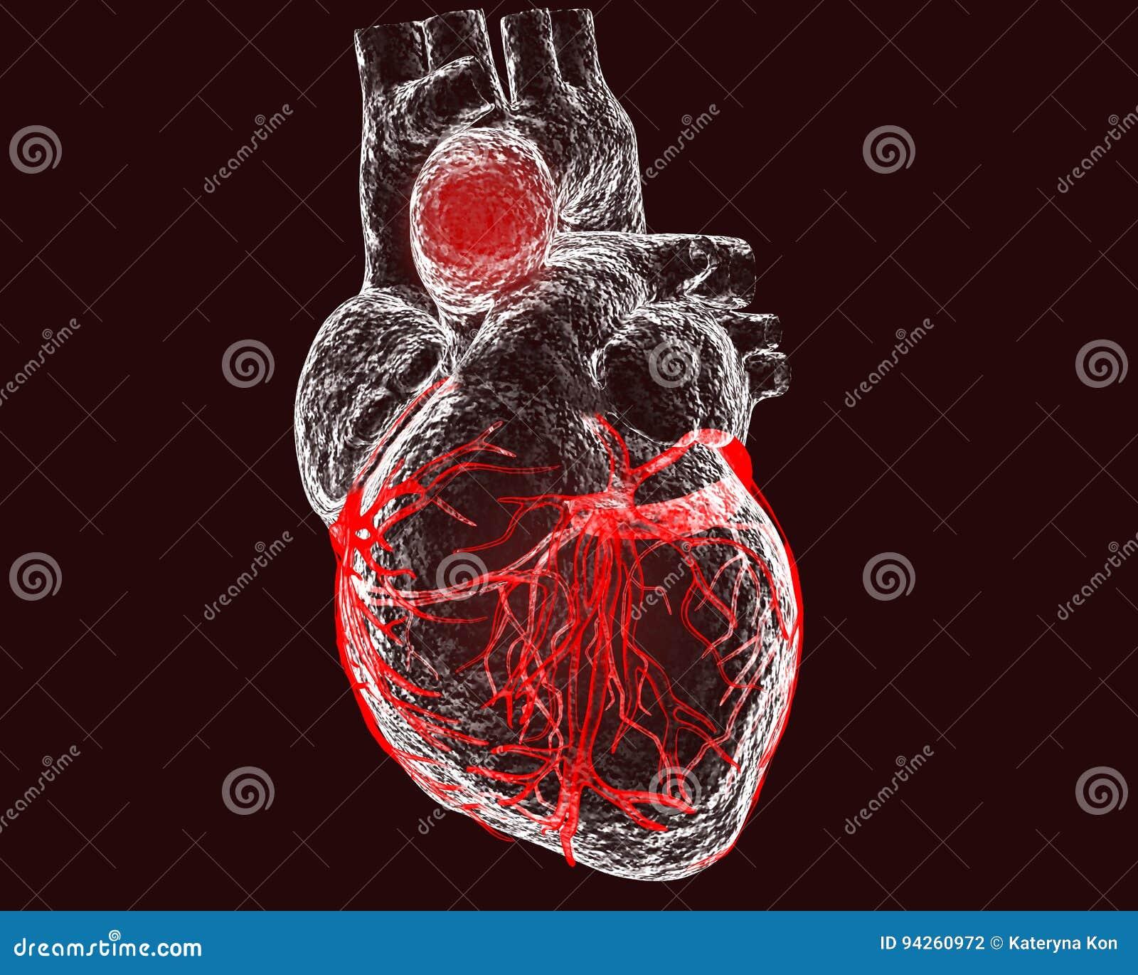 主动脉升部动脉瘤