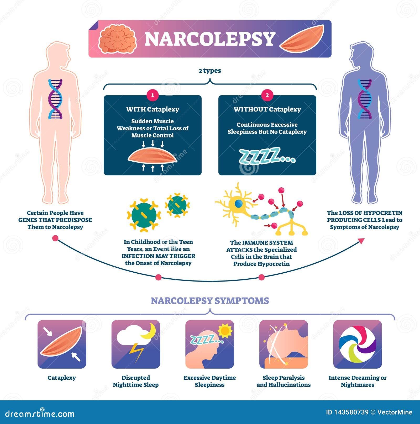 嗜眠发作传染媒介例证 infographic被标记的肌肉强度的疾病