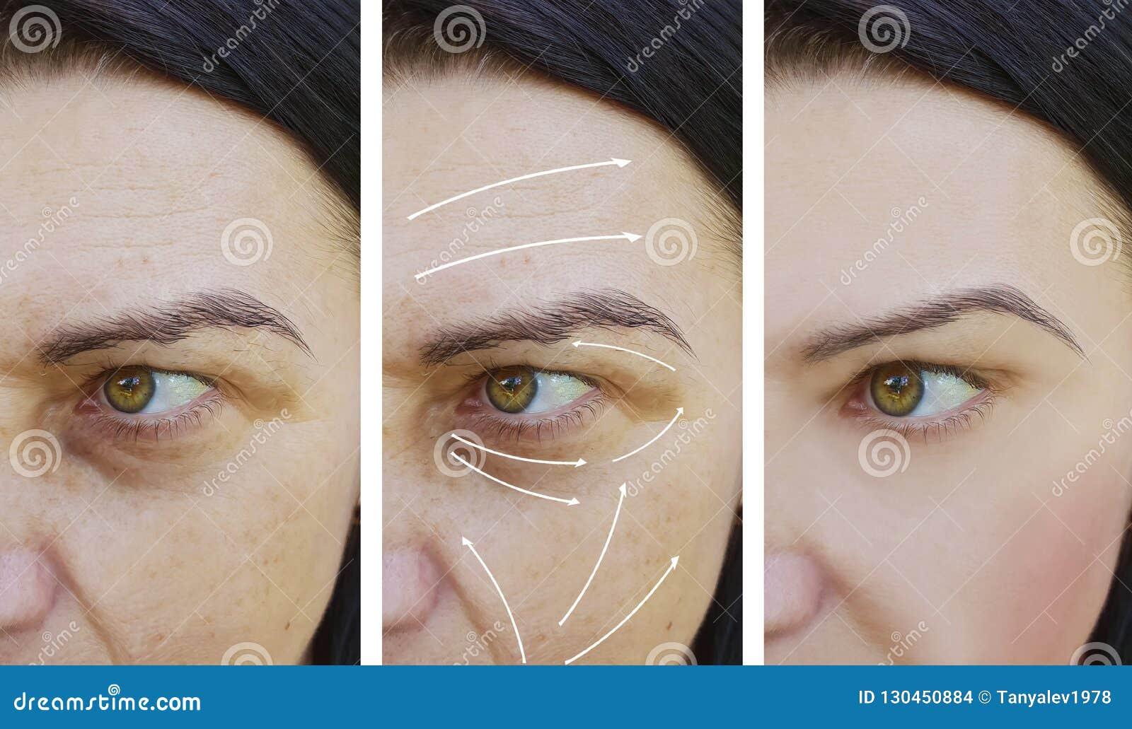 在做法前后,妇女脸面护理起皱纹圆鼓的作用区别补白