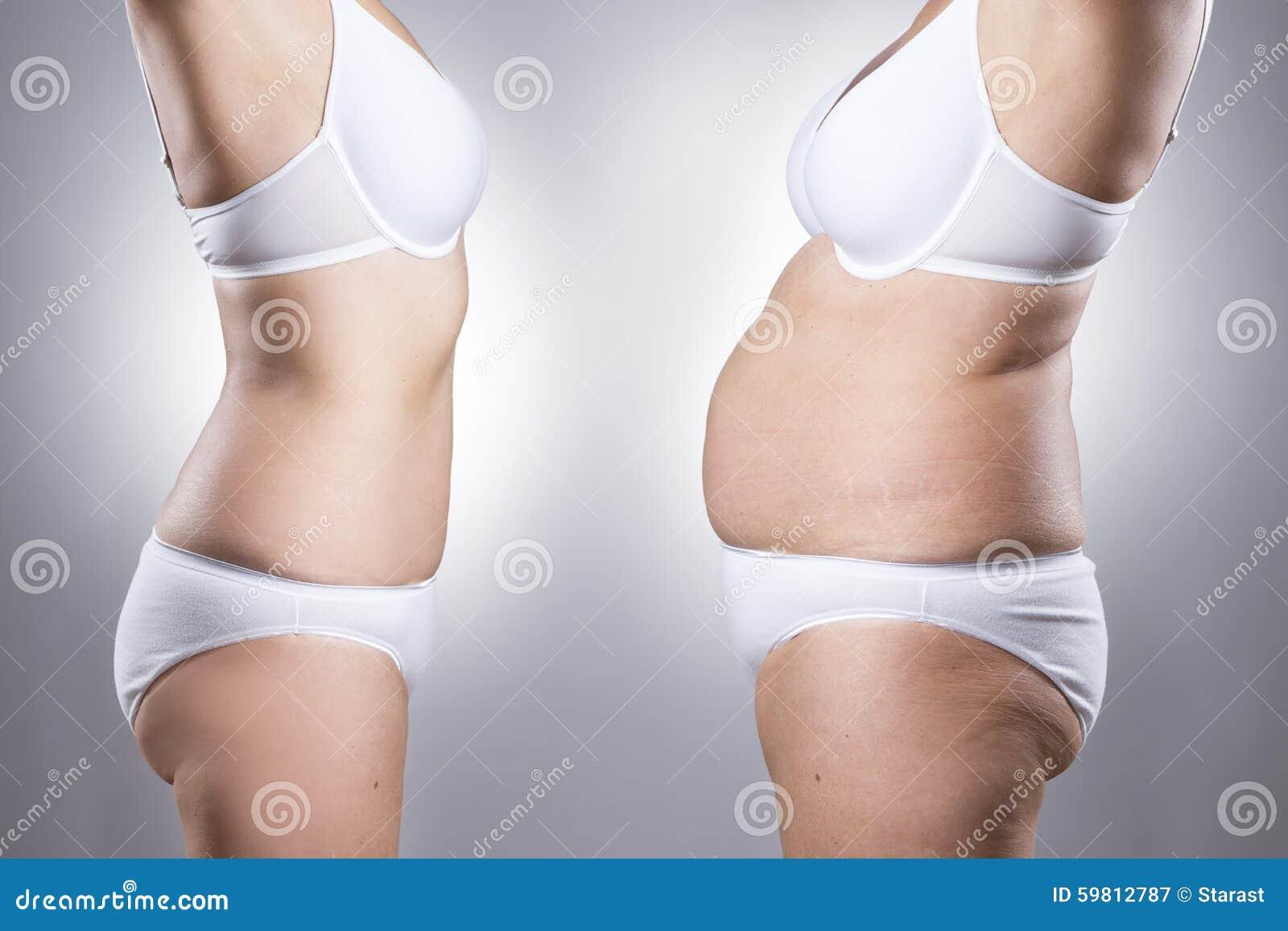 在减重前后的妇女的身体