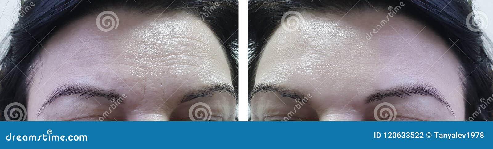 在化妆做法胶原前后,面对年长妇女前额皱痕