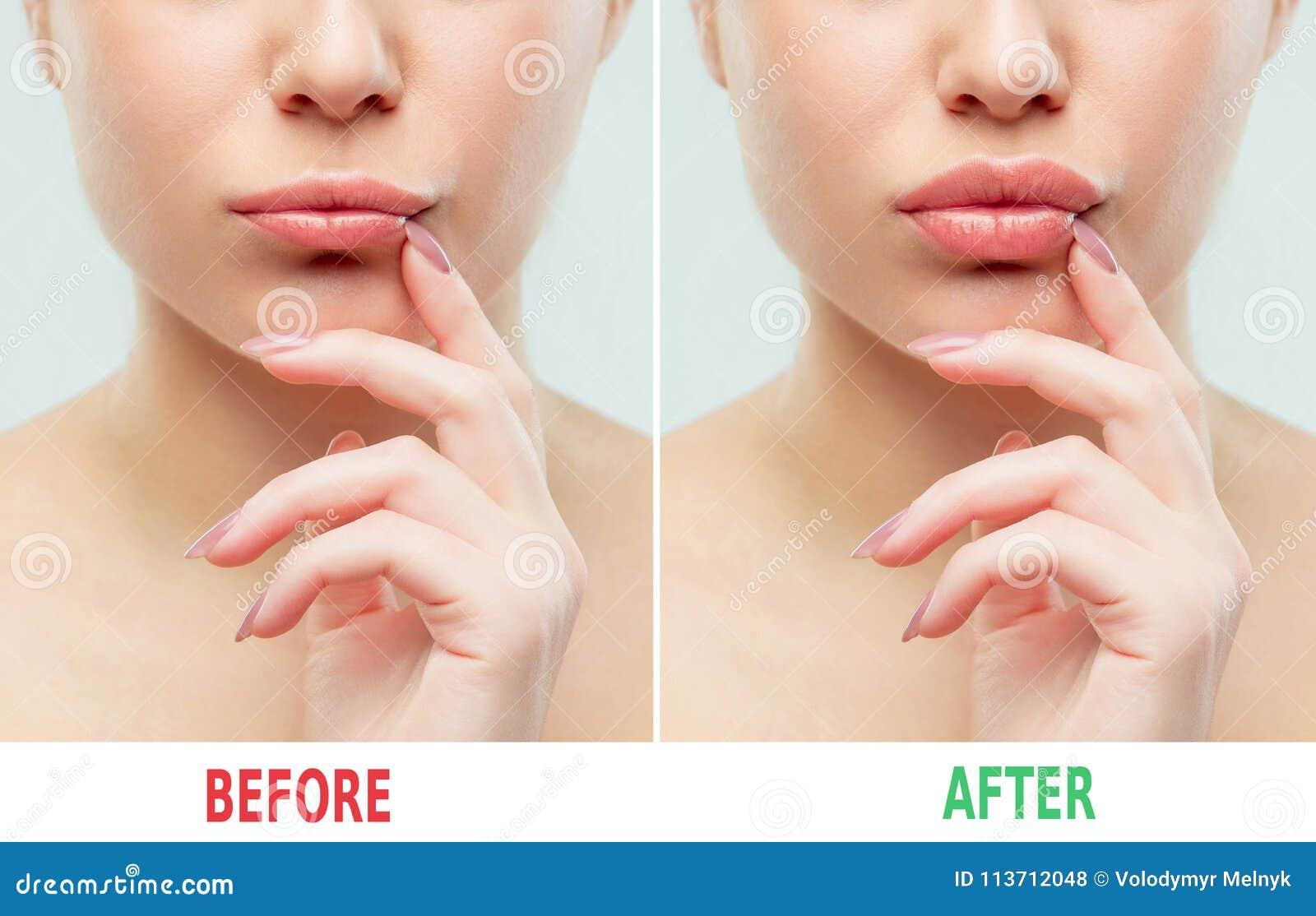 在嘴唇补白射入前后 秀丽塑料 有自然构成的美丽的完善的嘴唇