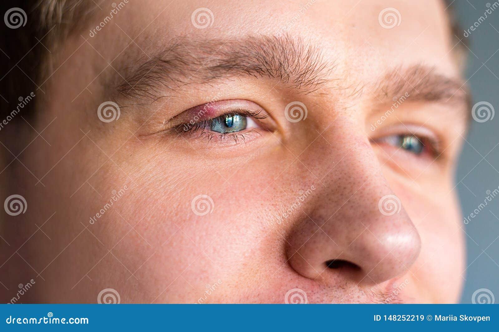在圆鼓和痛苦的红色上部眼睛盒盖的选择聚焦有猪圈传染起始的由于阻塞的油腺和