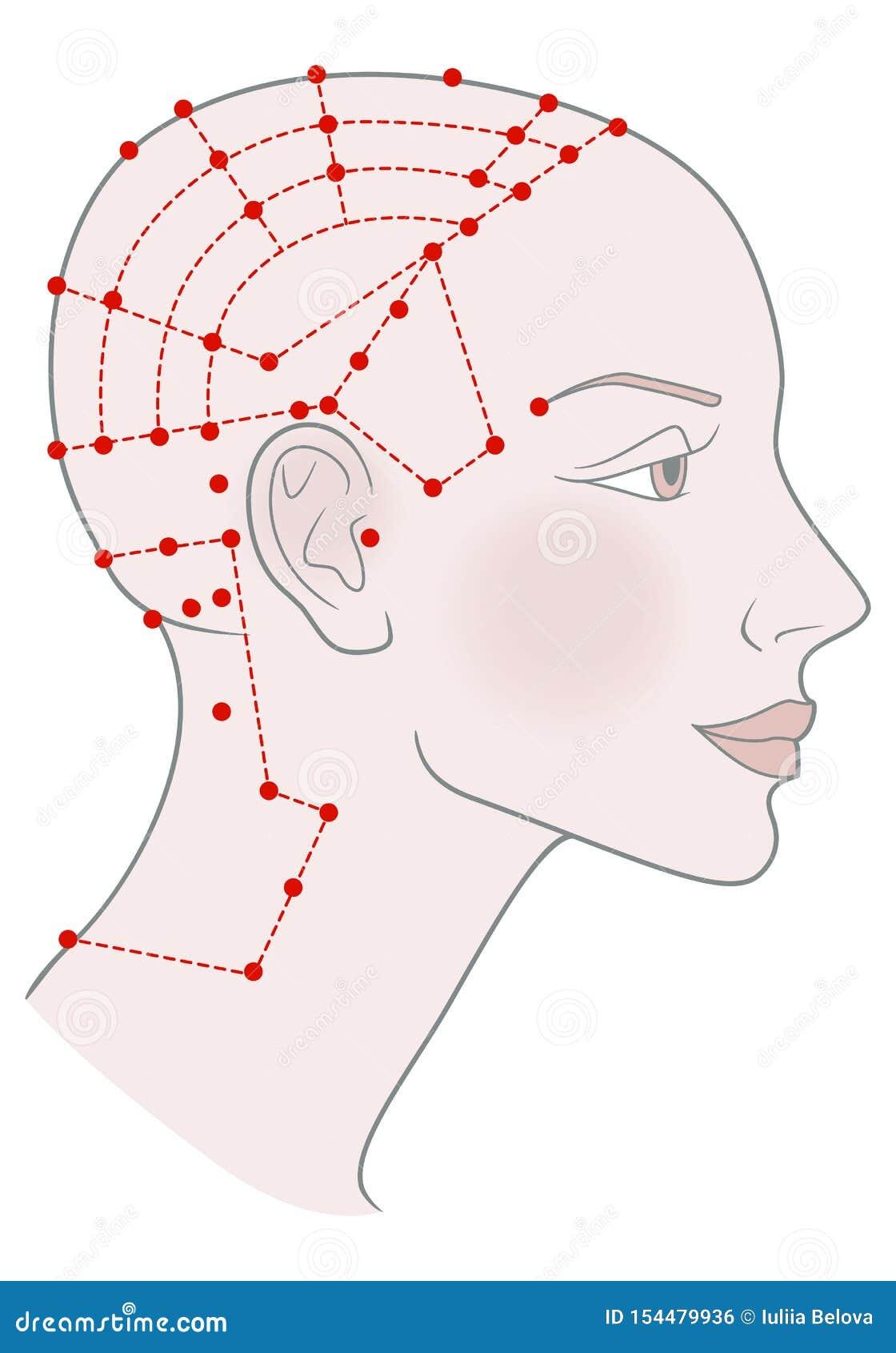 在外形模板的活跃针灸点在头背面 有被刮的秃头无毛的头和美丽的女孩