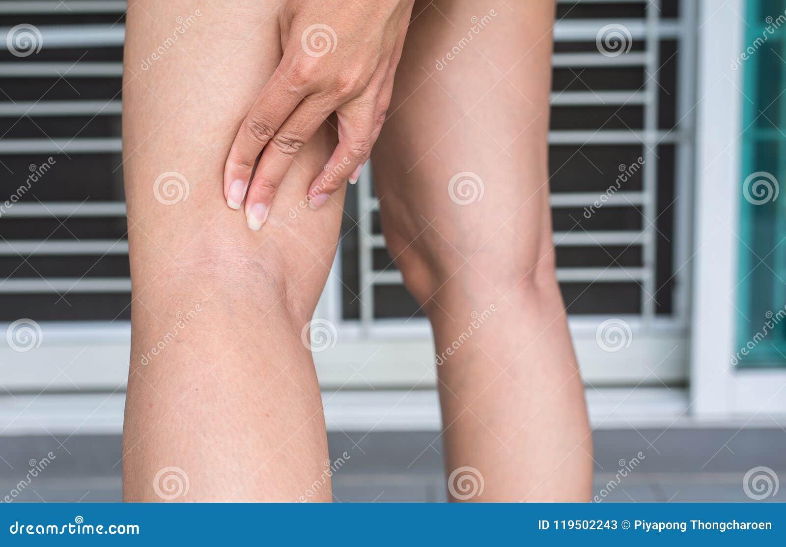 在妇女腿的静脉曲张,在皮肤层数附近的正常静脉鼓起