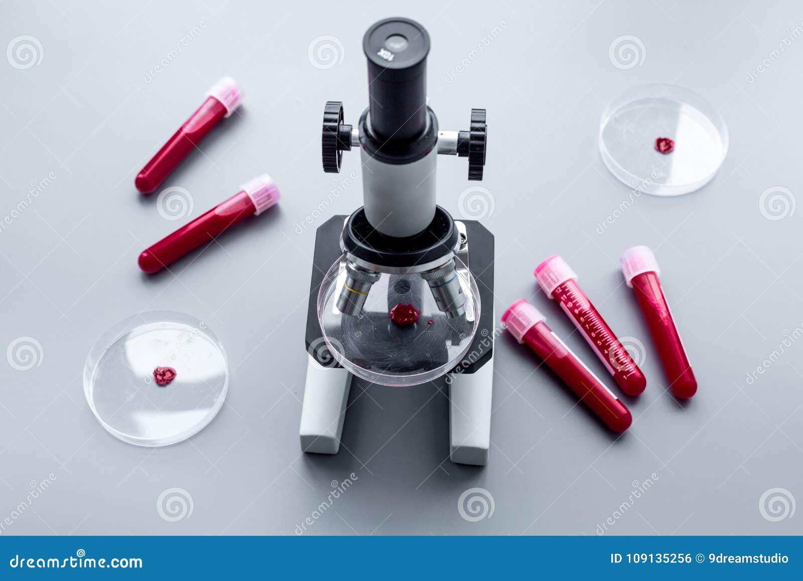 在实验室做验血 无政府主义 试管和培养皿在显微镜附近在灰色背景顶视图