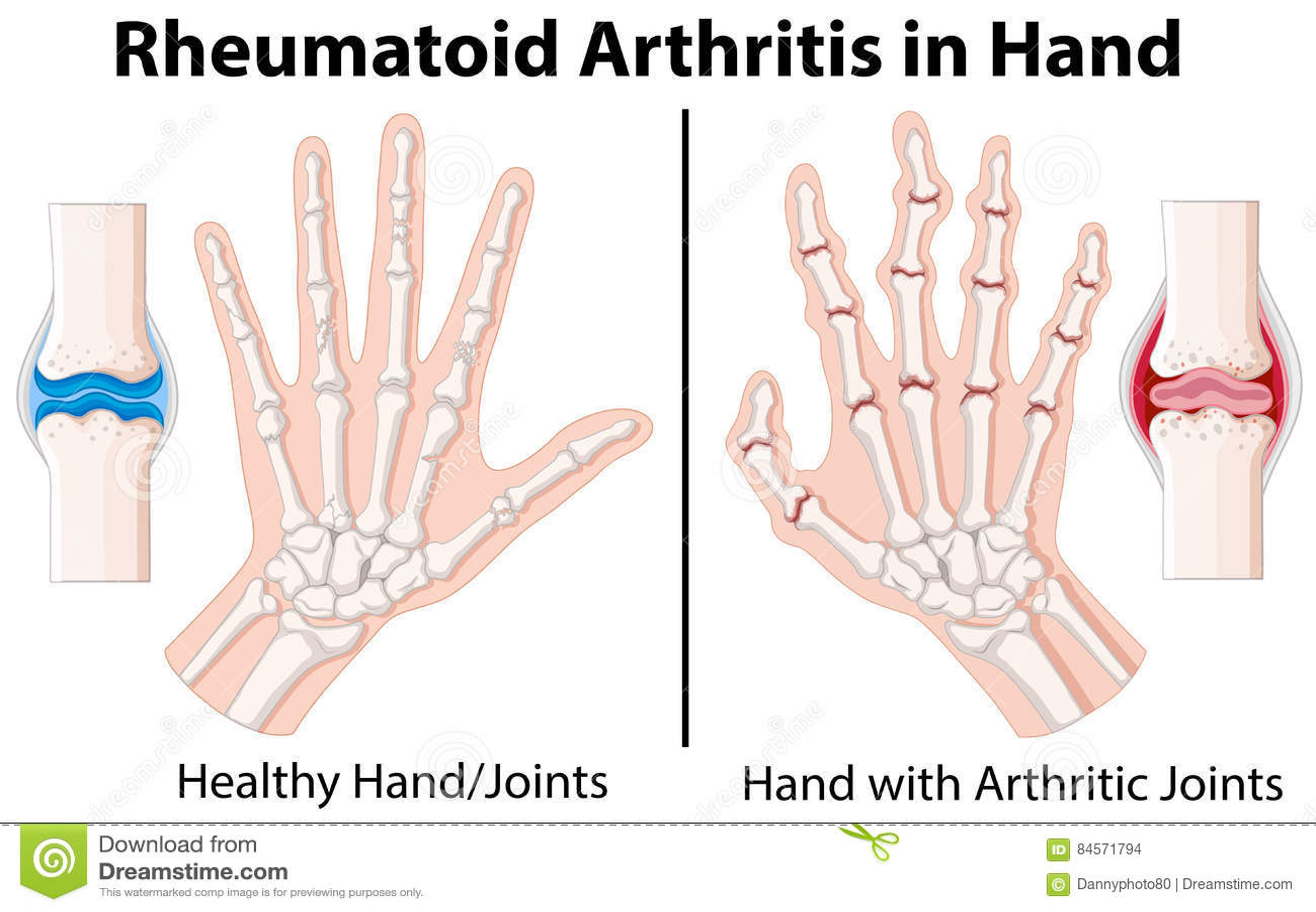 在手中显示风湿性关节炎的图