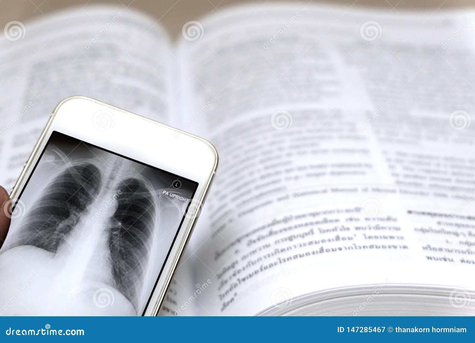 在智能手机的X-射线
