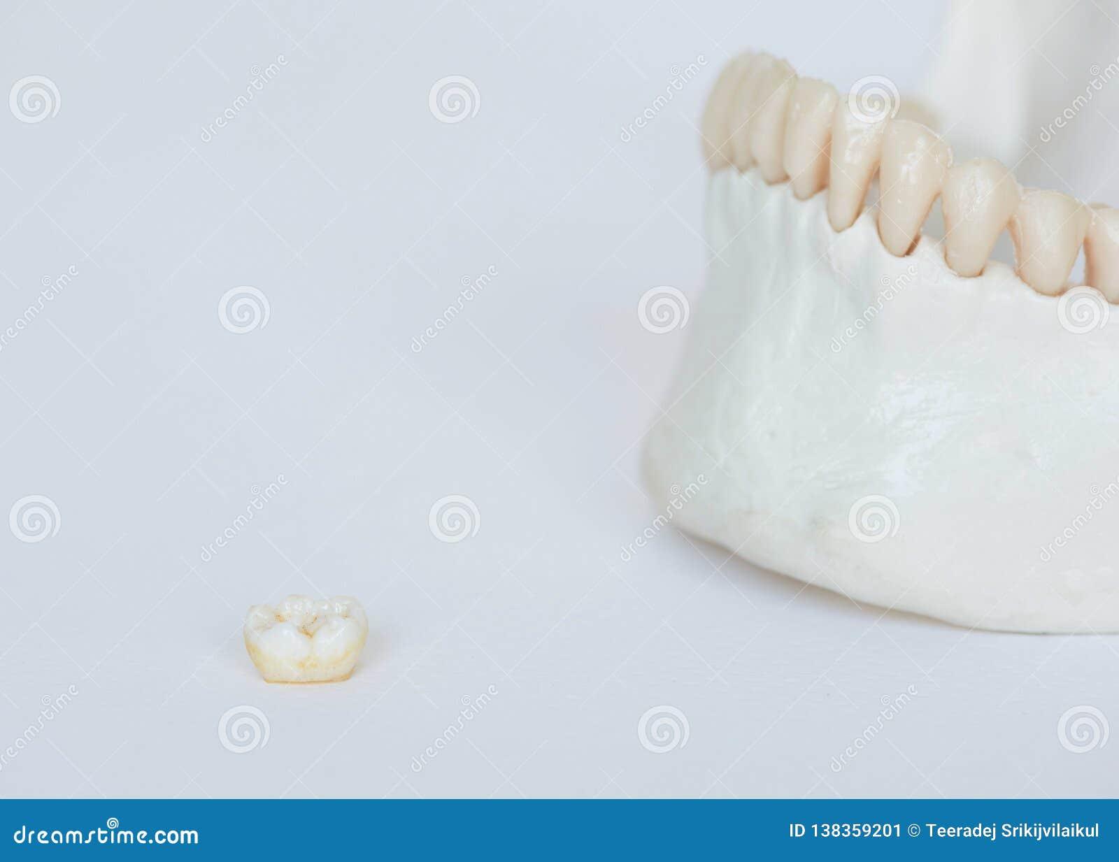 在白色背景的槽牙牙和下颌骨头模型