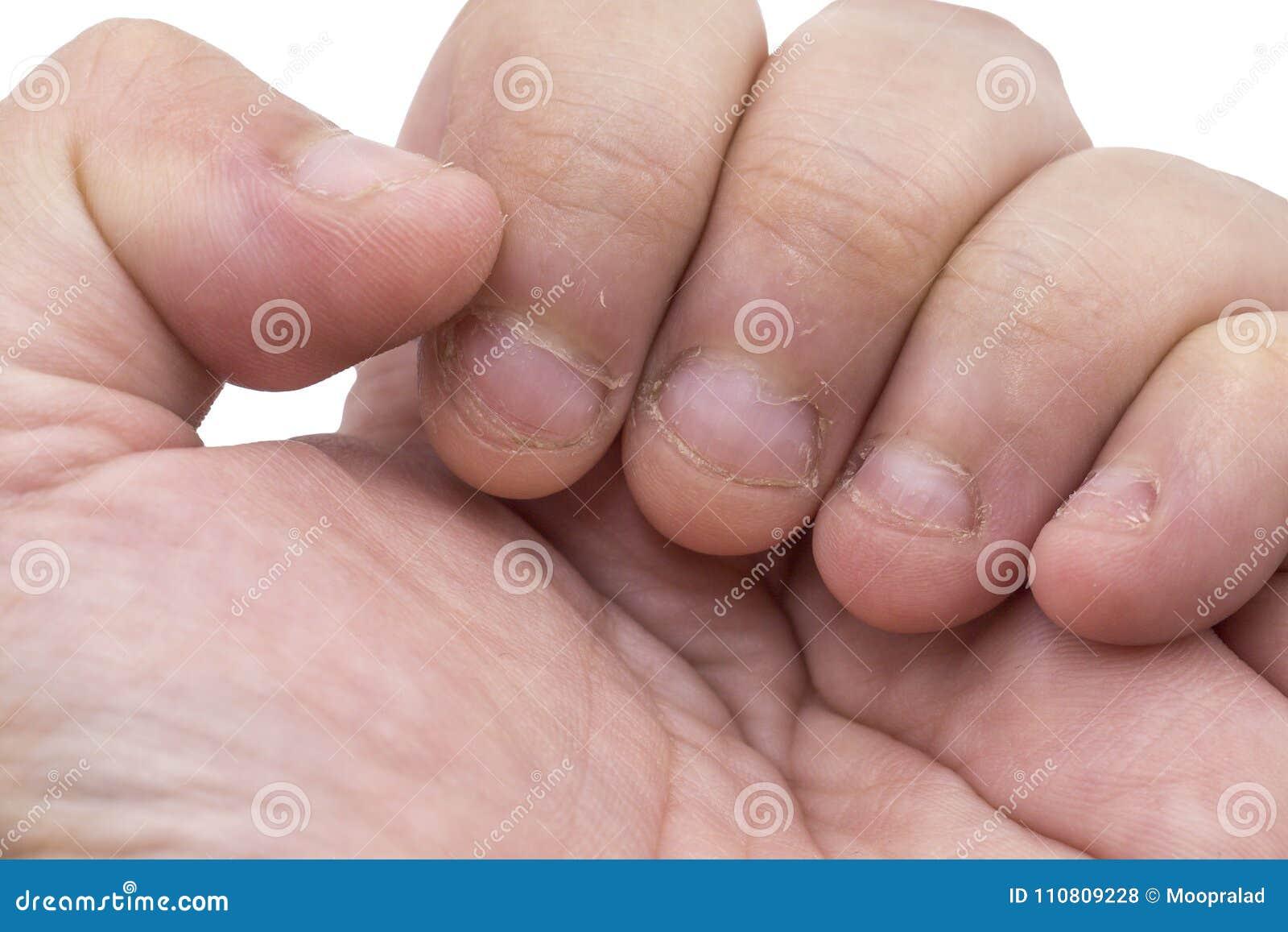 在白色背景的被咬住的手指特写镜头与裁减路线