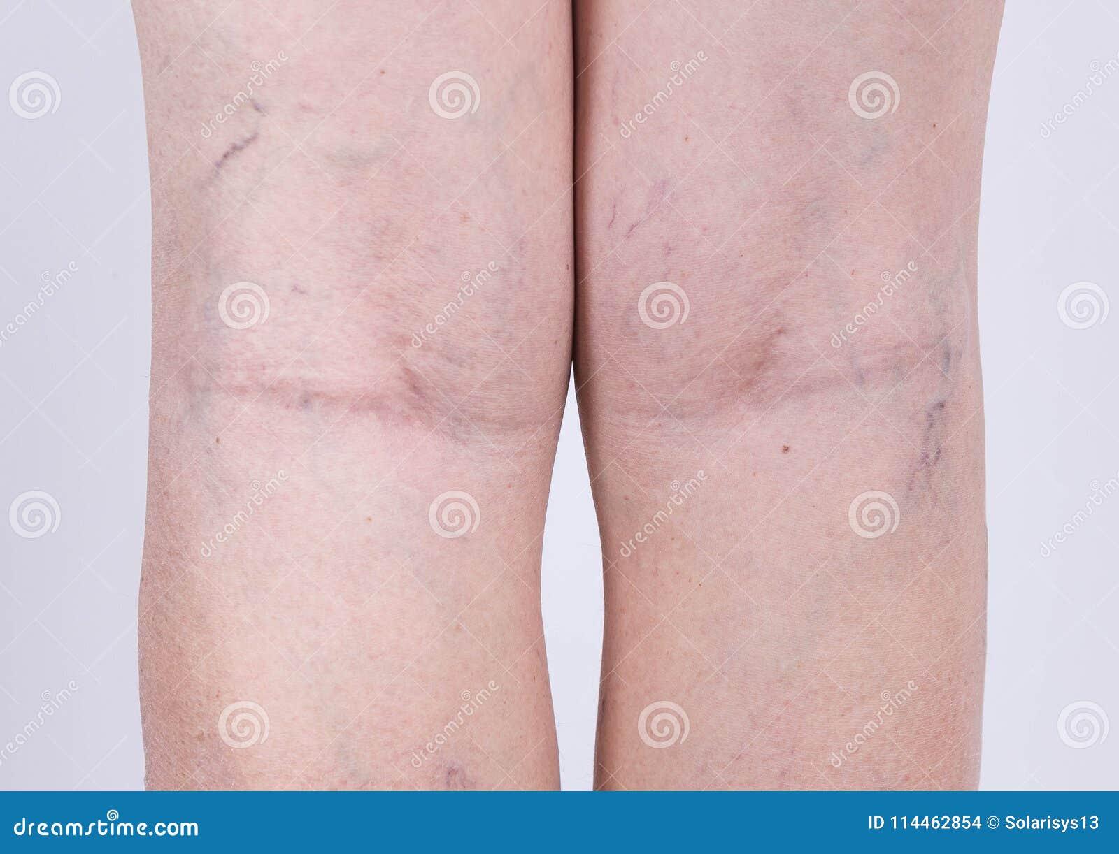 在的静脉曲张妇女的腿