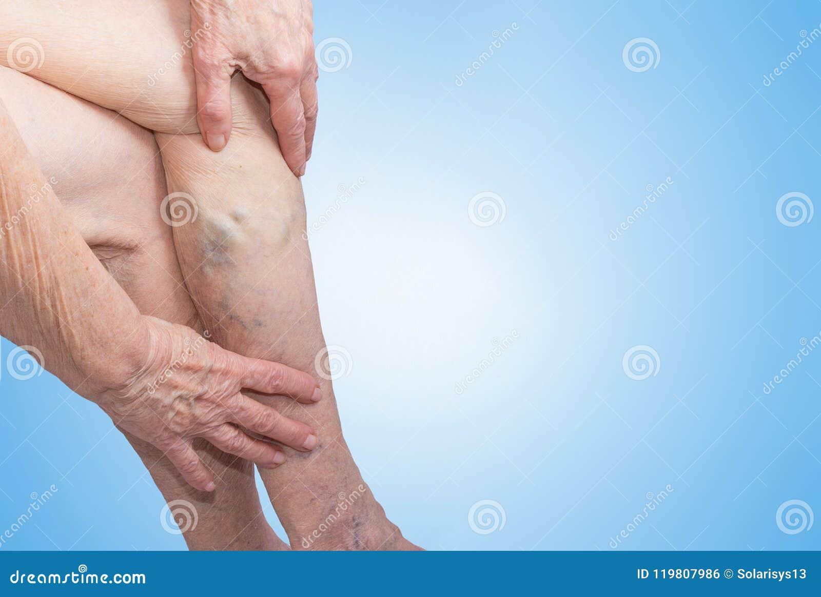 在的静脉曲张老妇人的腿蓝色的